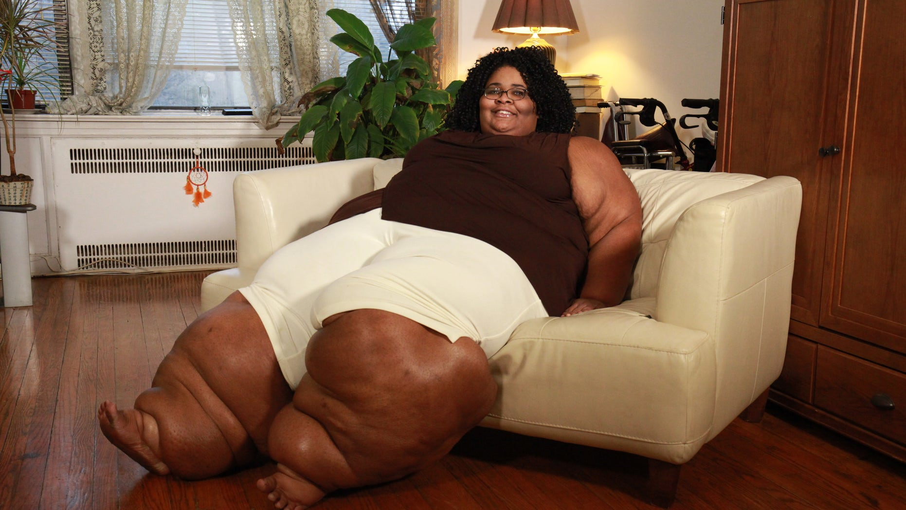 Katia Page from New Jersey suffers with lipedema, a chronic disorder that causes fatty tissue to accumulate in mass around the lower body.