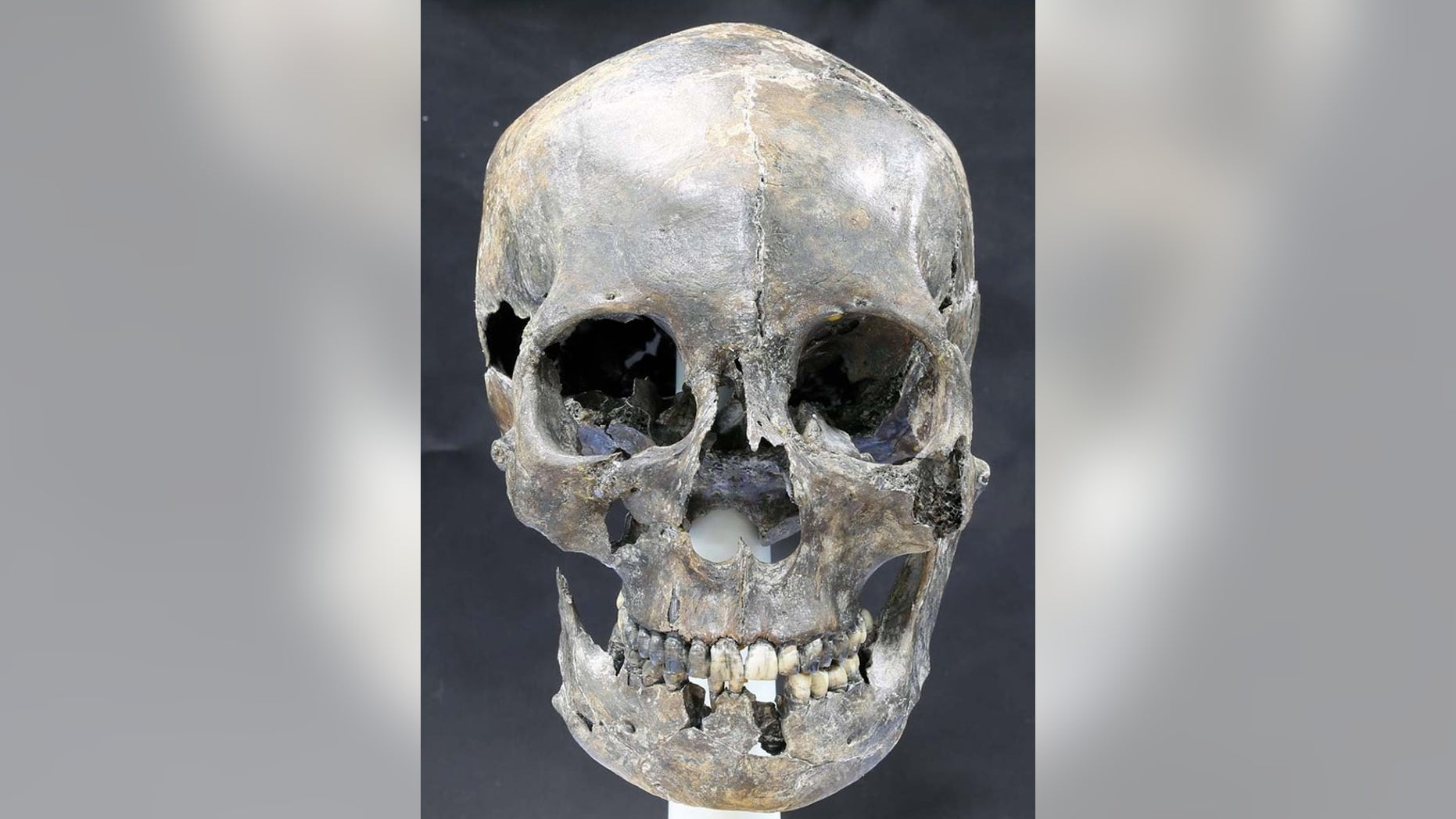 The 1,500-year-old skull (shown here after reconstruction) of a woman, who was part of an ancient royal dynasty called the Silla culture, shows she had an elongated head.