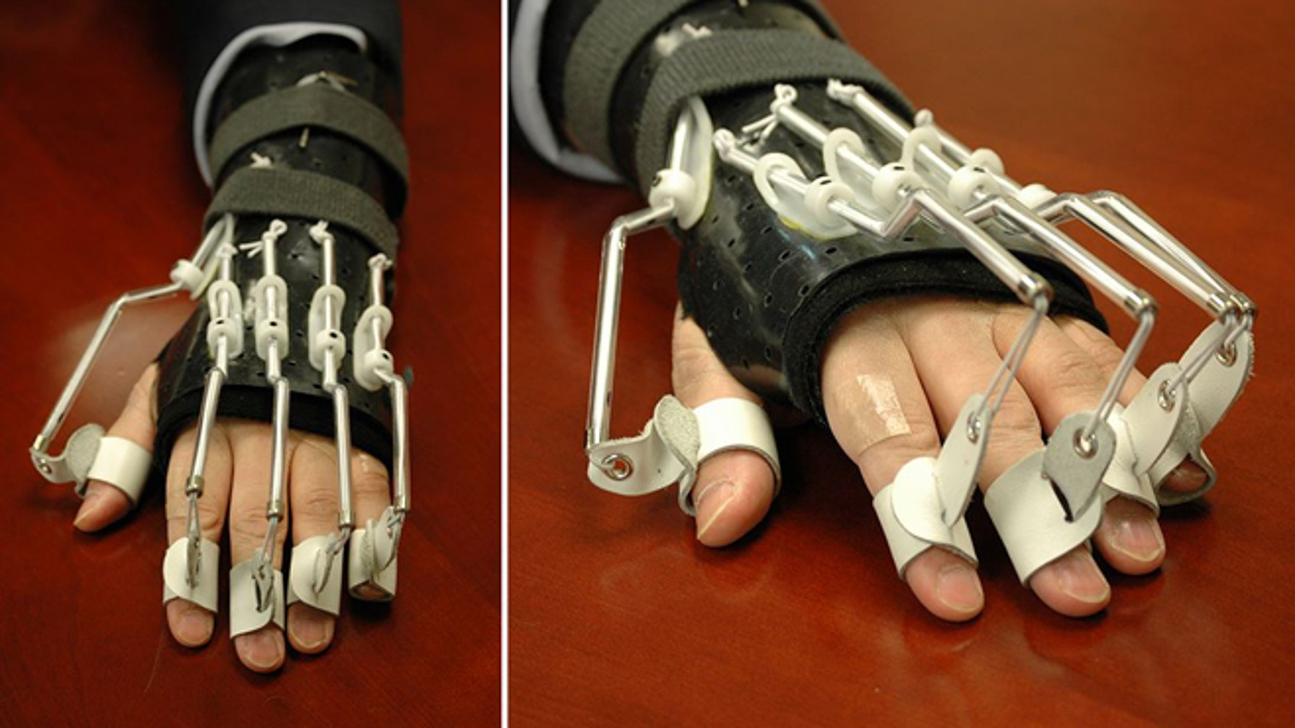 US Ambassador Mark Lippert was outfitted with a bionic hand to help him recover after last month's attack.