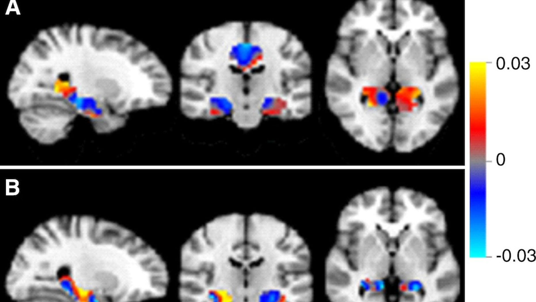 Discrimination maps for classifying mild cognitive impairment (MCI) subgroups, inside the masks that resulted in the highest accuracies. A: between patients with MCI that converted to Alzheimer's disease (MCIc) and s