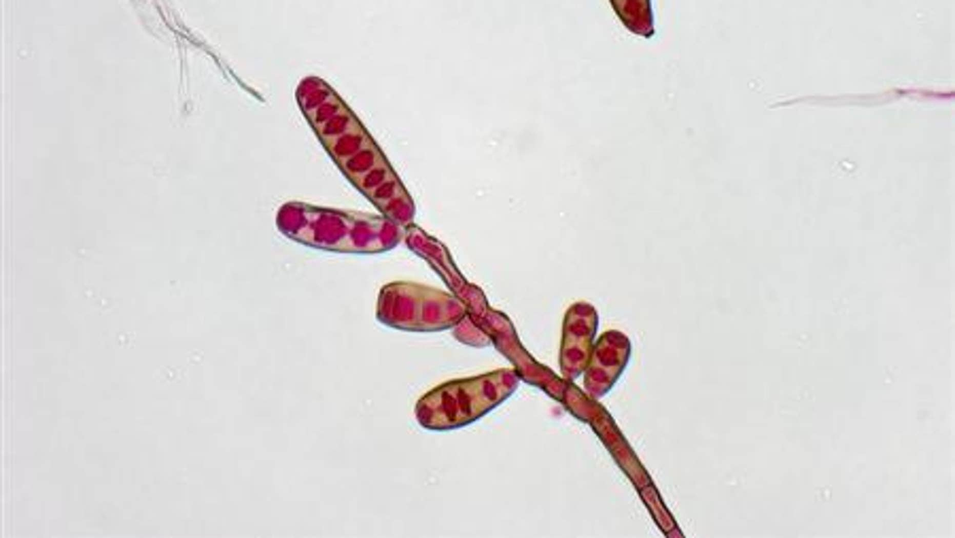 Exserohilum rostratum, a type of fungi, is seen in this handout image from the Centres for Disease Control
