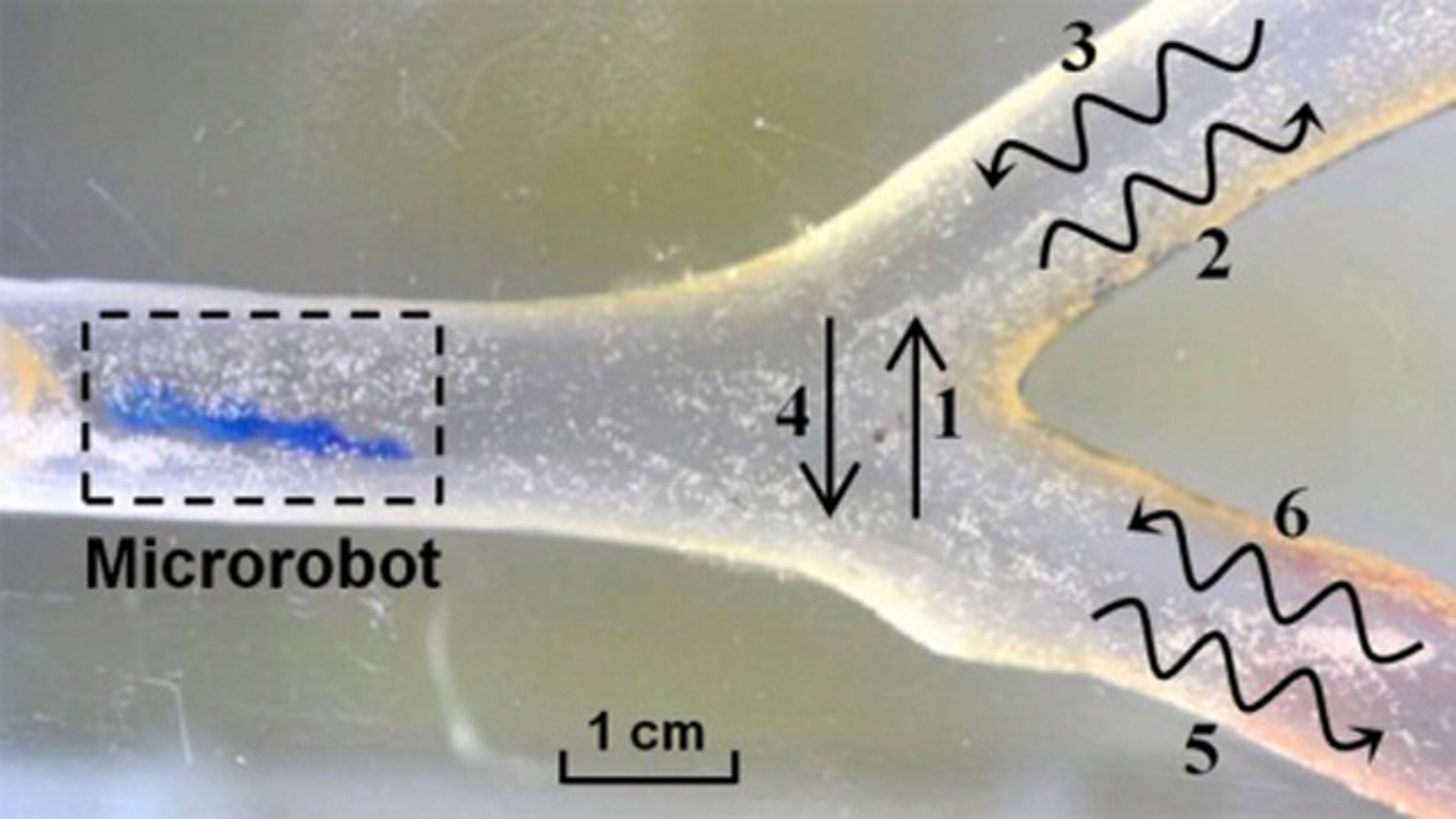 Researchers in South Korea demonstrated a microrobot moving through a structure intended to simulate the environment of a blood vessel. The microbot can move up and down (1 and 2), and wiggle through the simulated vessel in a helical motion (2, 3, 5, 6).