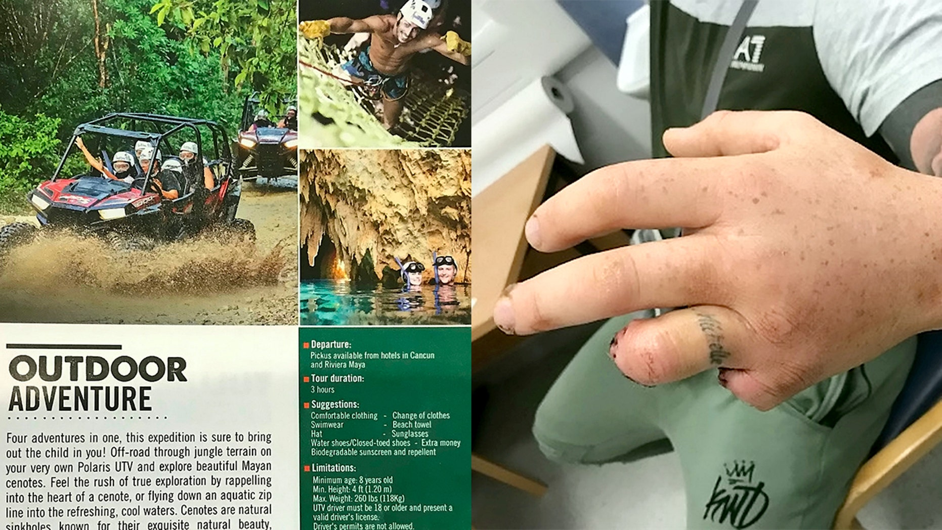 A father's UTV crashed on a jungle excursion in Mexico, causing him to lose two fingers.