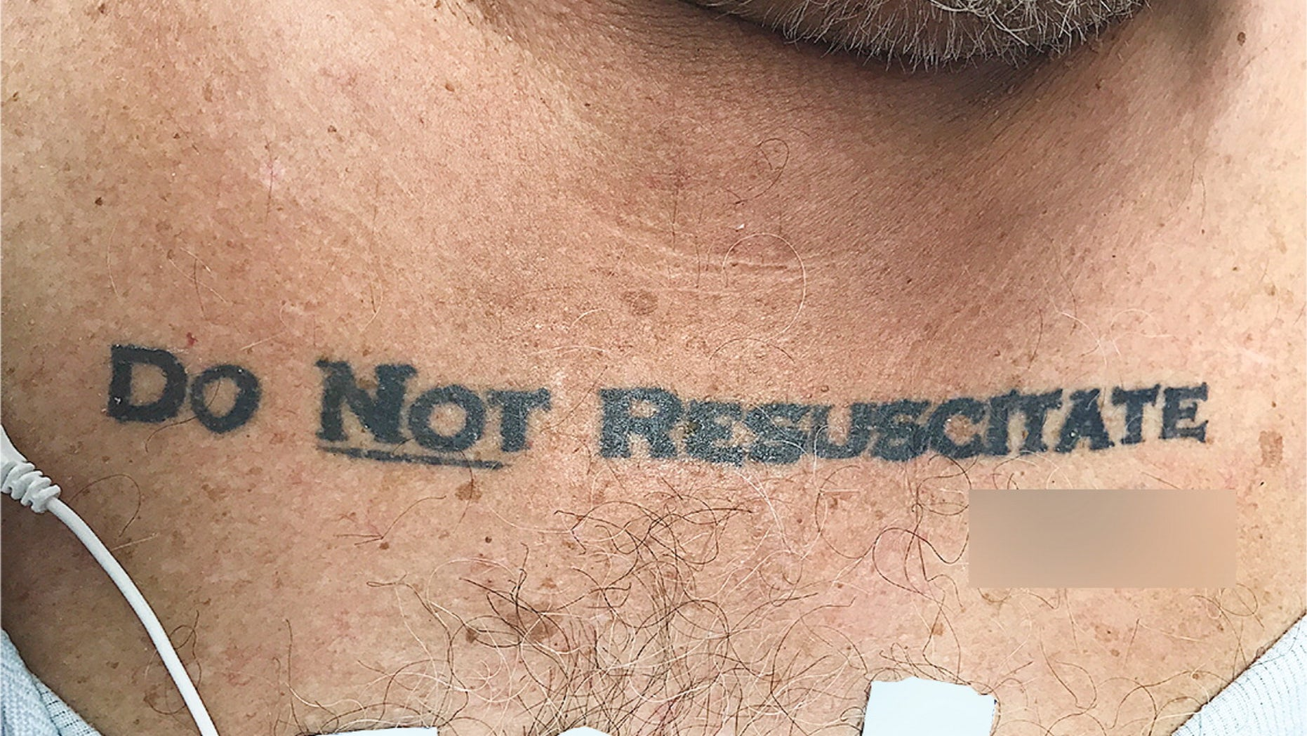 "Doctors faced an ethical dilemma after an elderly man with a ""Do Not Resuscitate"" tattoo on his chest appeared in their emergency room, unconscious and near death."
