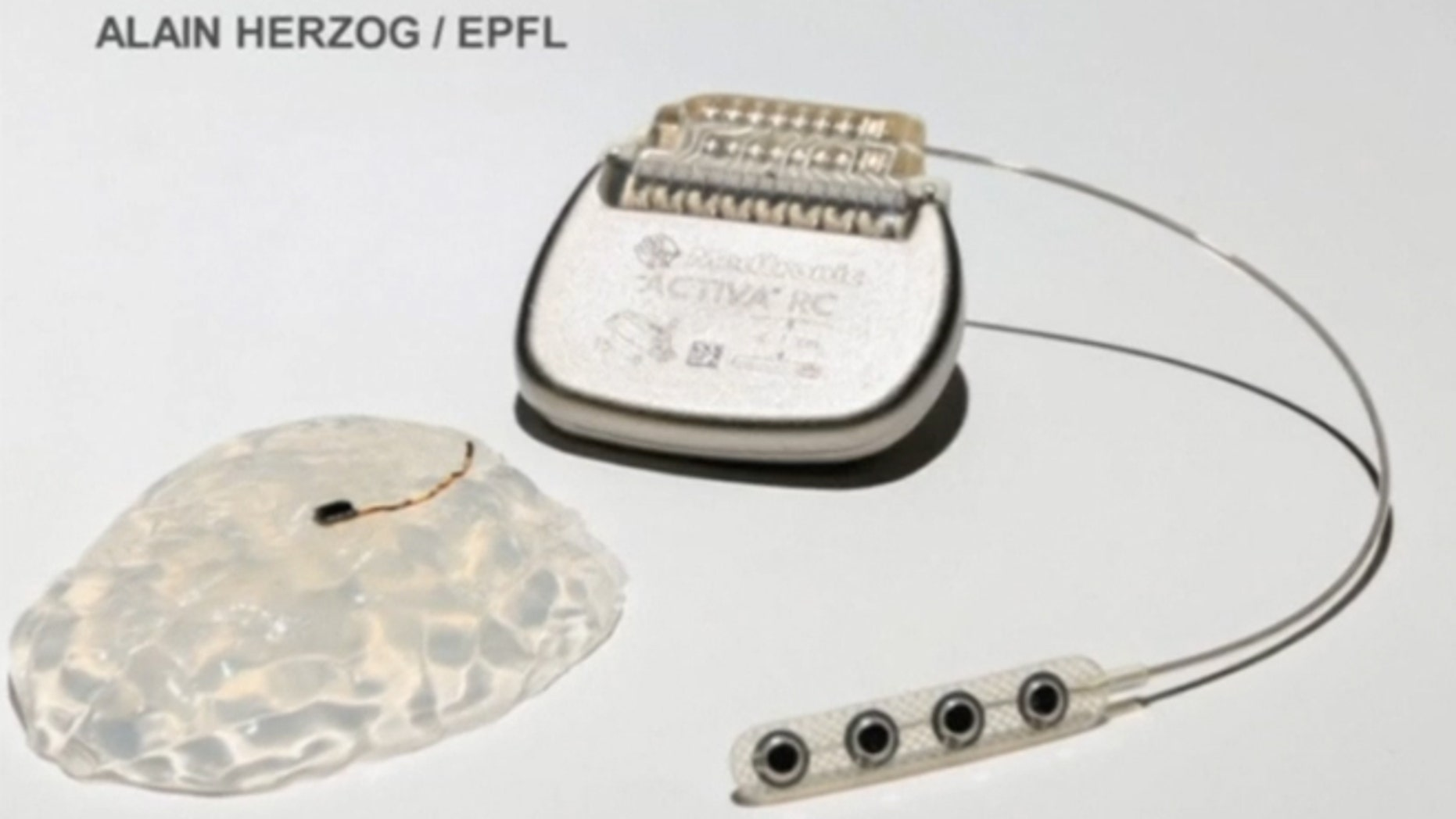 The neuroprosthetic interface acts as a wireless bridge between the brain and spine.