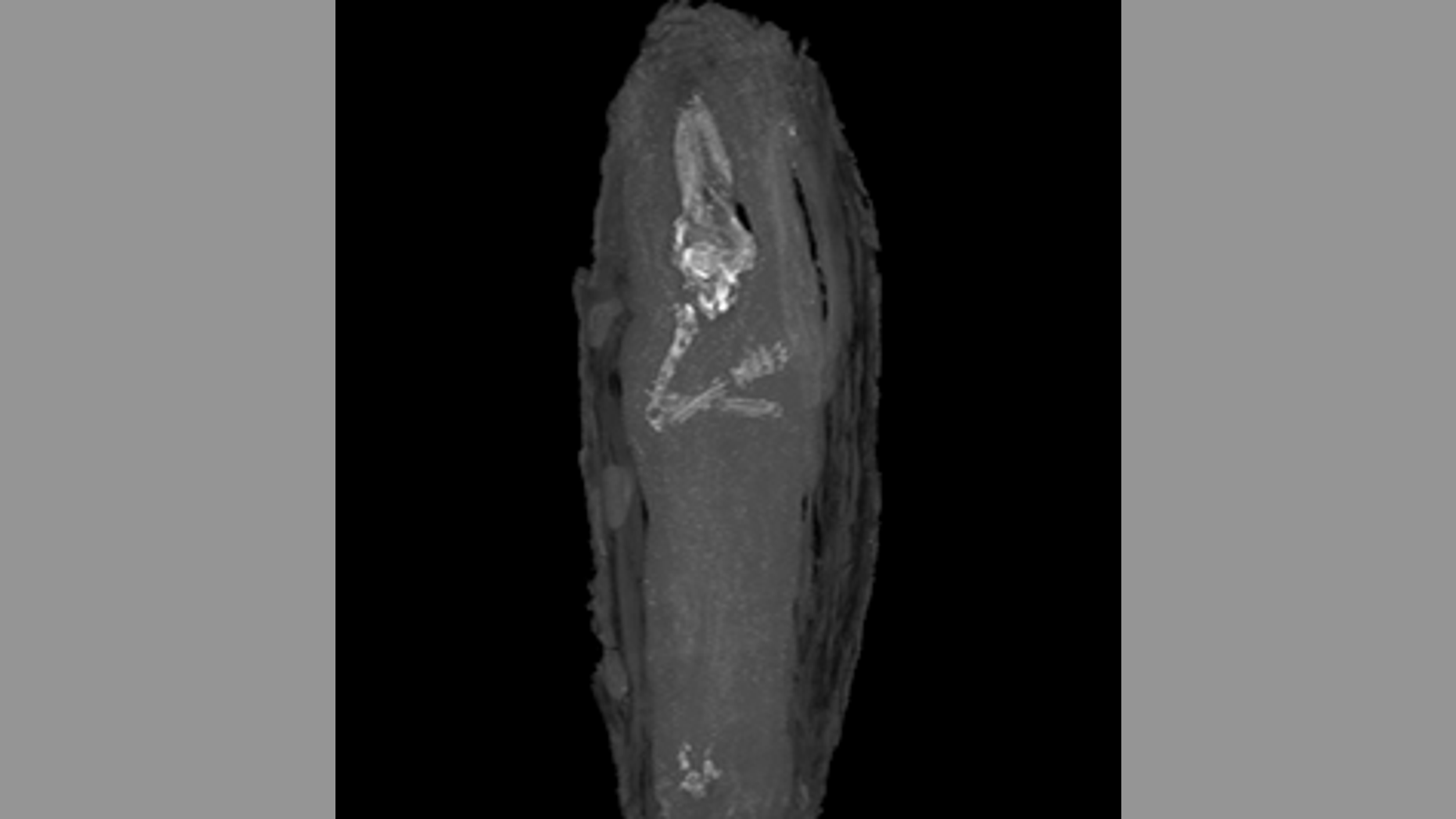 Micro CT scan image of the upper limbs and skull of fetus. (The Fitzwilliam Museum, Cambridge)