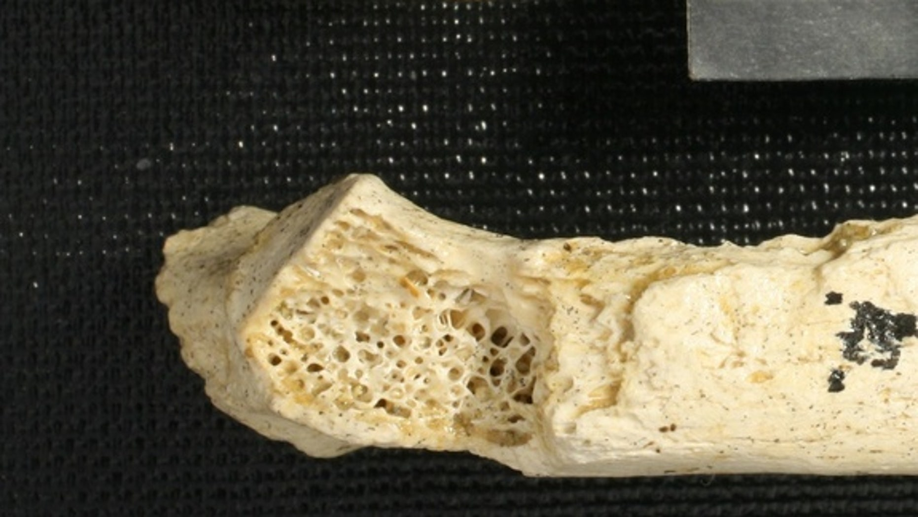 A Neanderthal rib fragment (top) reveals a gaping cavity where weblike spongey bone should be (see healthy rib, bottom). This cavity is evidence of the oldest known human tumor ever found, reported June 5, 2013 in the journal PLOS ONE.