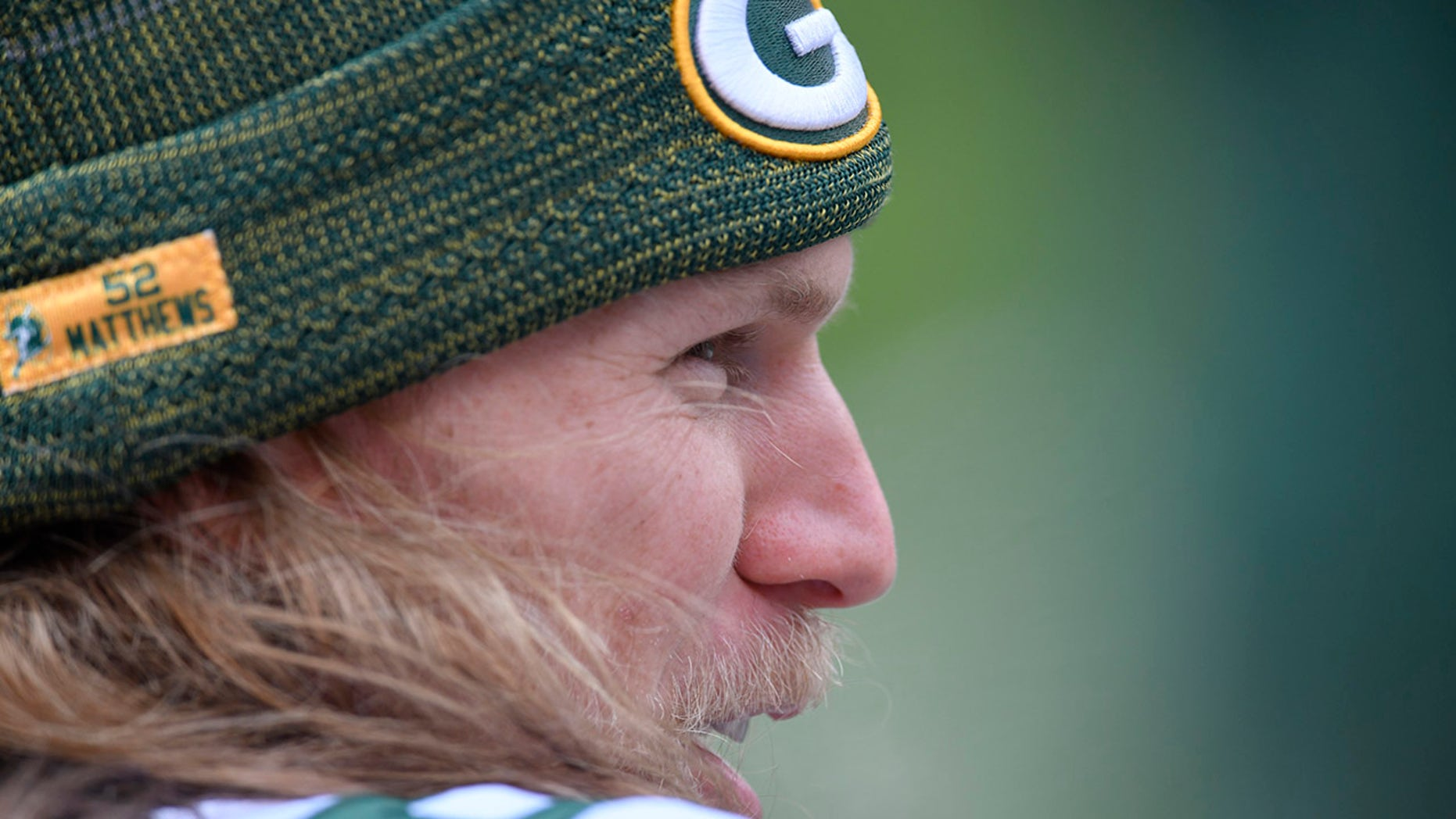 Clay Matthews was injured in a charity softball game over the weekend.