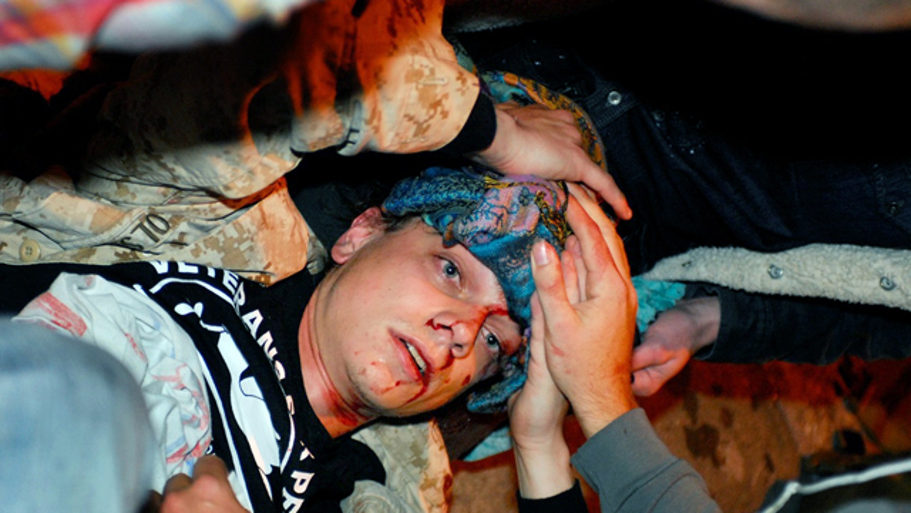 Oct. 25, 2011: 24-year-old Iraq War veteran Scott Olsen lays on the ground bleeding from a head wound after being struck by a by a projectile during an Occupy Wall Street protest in Oakland, Calif.