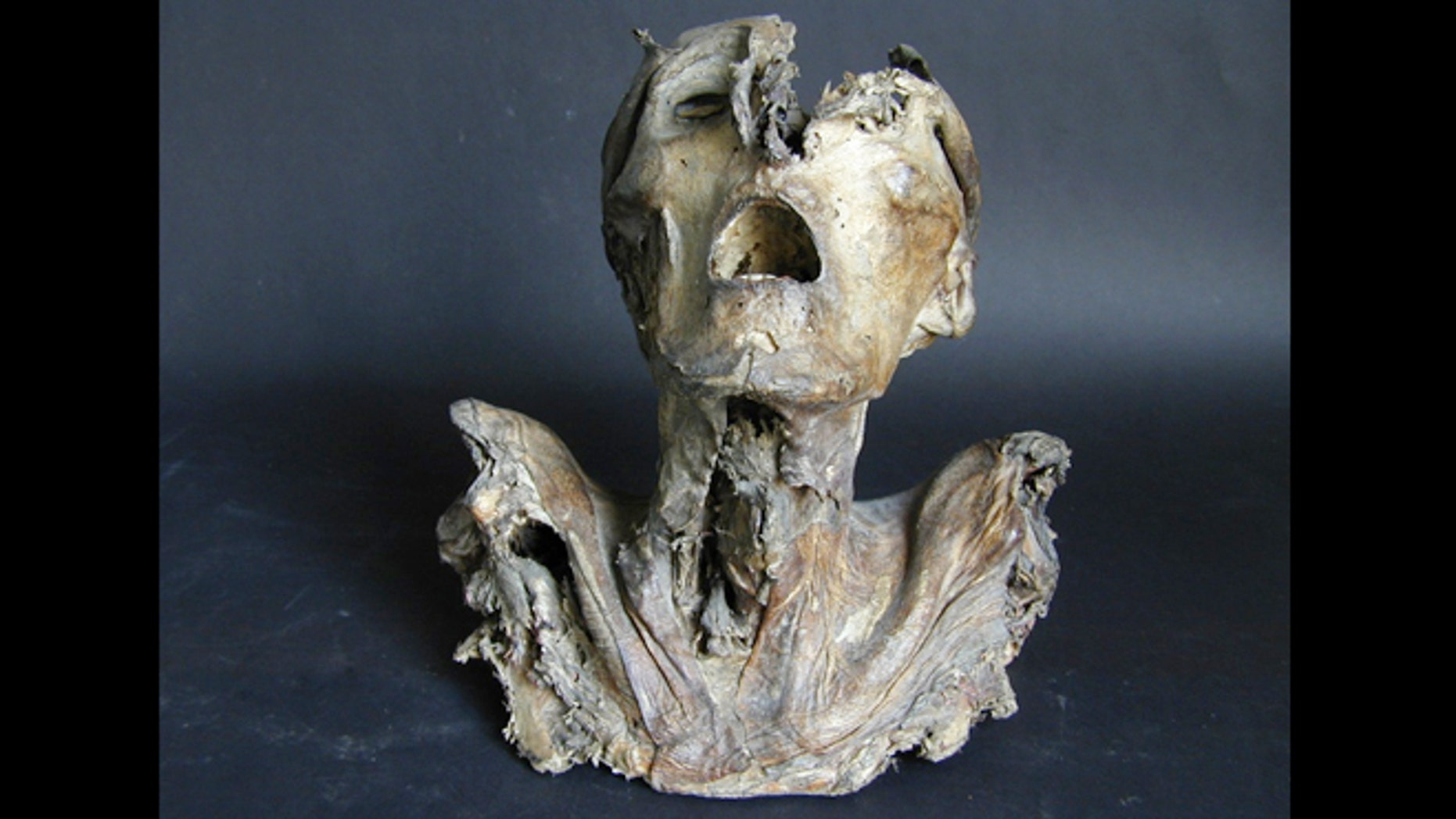 This anatomical specimen dating to the 1200s is the oldest known in Europe.
