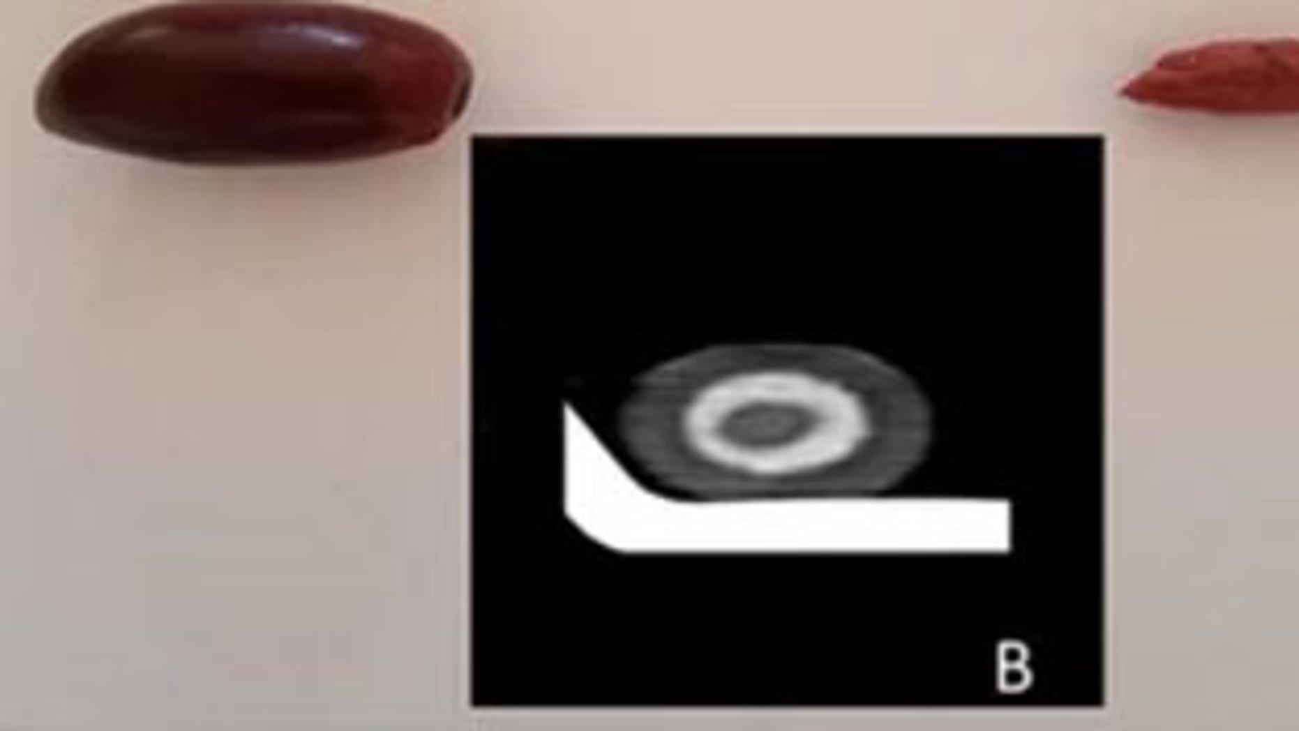 An olive and its pit; the inset image is a scan of a single black olive, which is similar in appearance to the olive in the man's gut.