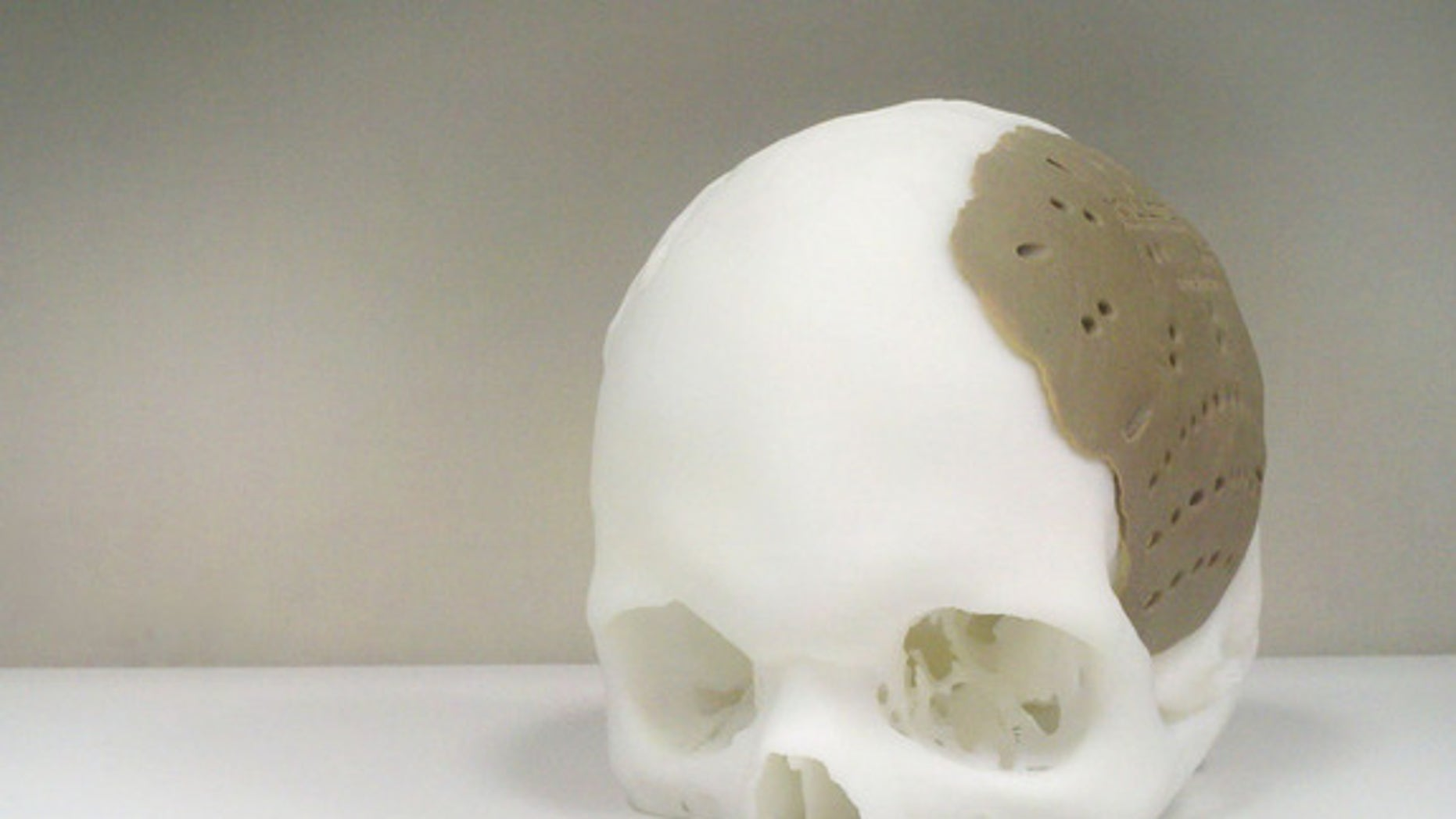 A 3D-printed skull implant.