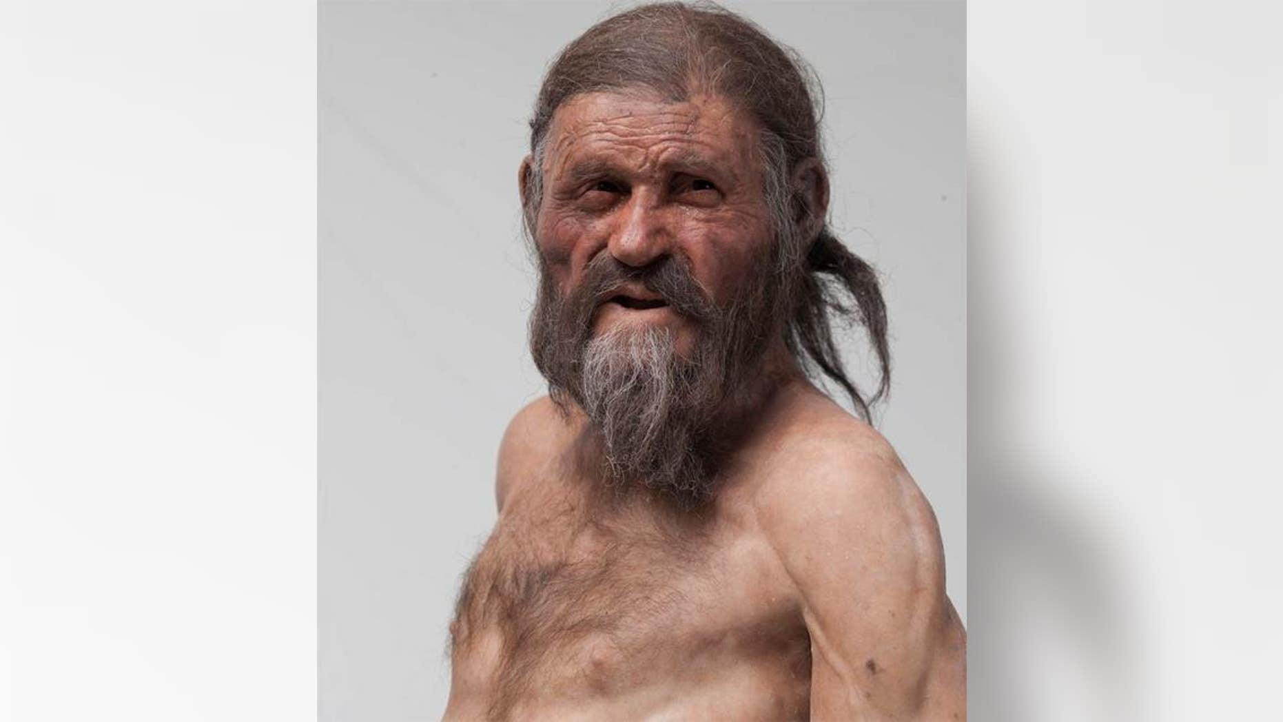 Ötzi the Iceman, a well-preserved mummy discovered in the alps in 1991, showed evidence of calcium buildup in his arteries. Now, new research shows he had a genetic predisposition to heart disease.