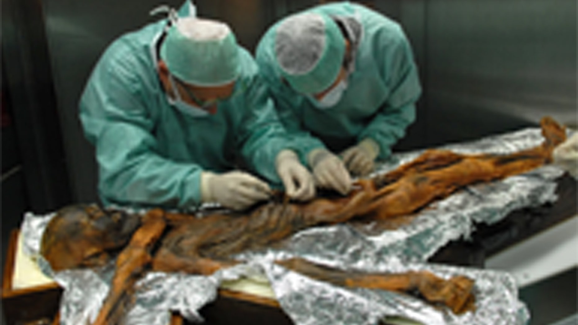 Scientists take samples from Ötzi's stomach during an exam in Bolzano, Italy, in November 2010. Credit: South Tyrol Museum of ArchaeologyEuracM. Samadelli