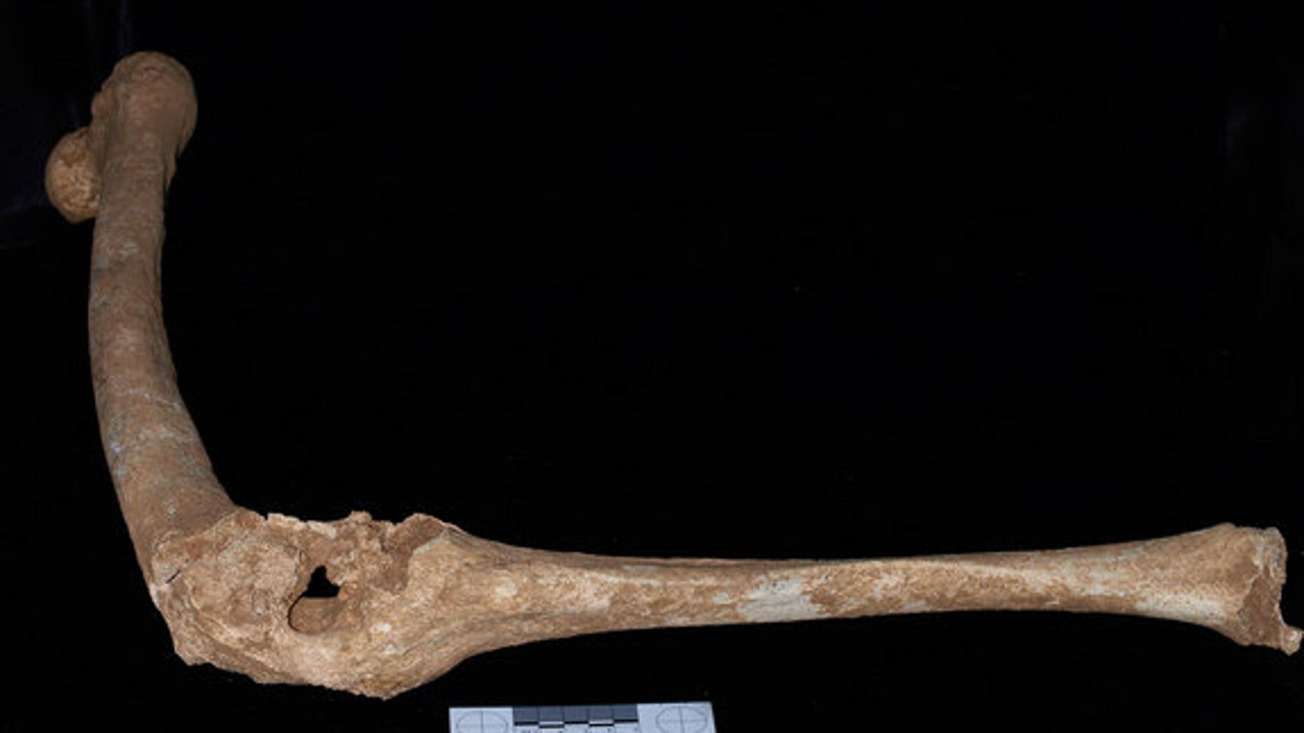 The left leg of an adult male skeleton found in Tomb I at Vergina. The thigh bone (femur) and one of the bones of the lower leg (the tibia) are fused, and hole at the knee suggests a devastating penetrating injury.