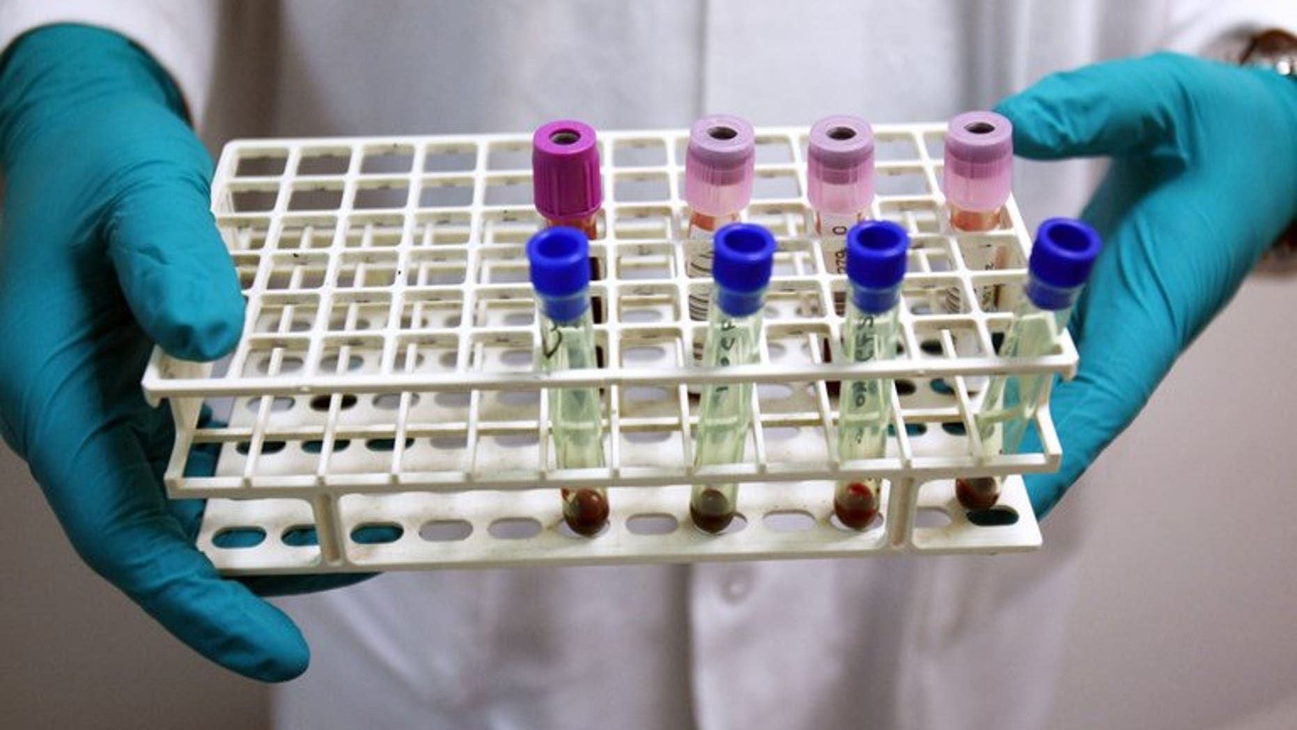 This file illustration photo shows a technician holding blood samples a laboratory near Paris. A Singapore-based group fighting the spread of viral hepatitis called for greater political will to combat the disease, as new data showed it killed one person every 30 seconds in Asia.