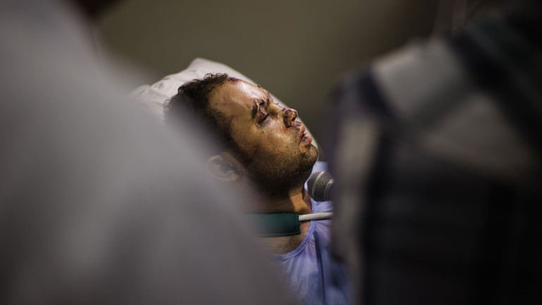 International and local media interview an Egyptian police officer lying on his hospital bed on August 18, 2013 as he recovers from gunshots wounds sustained during clashes with supporters of ousted president Mohammed Morsi, in Cairo. An Islamist alliance opposed to the Egyptian military's ouster of president Mohamed Morsi called off rallies that they planned to stage in Cairo on Sunday.