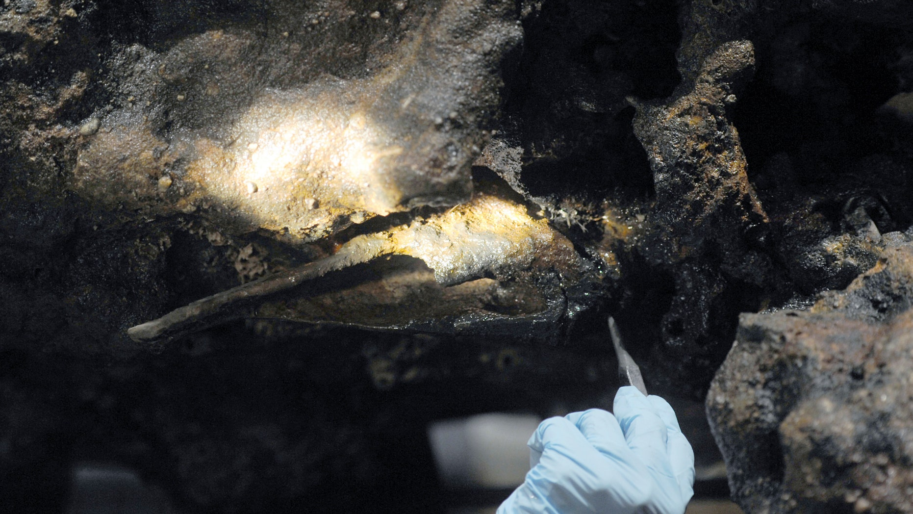 """In this Aug. 14, 2017 photo, Marie Kesten Zahn, an archaeologist and education coordinator at the Whydah Pirate Museum in West Yarmouth, Mass., probes the concretion surrounding a leg bone that was salvaged from the Whydah shipwreck off the coast of Wellfleet on Cape Cod. Researchers are working to determine if the remains belong to Samuel """"Black Sam"""" Bellamy, the captain of the ship. (Merrily Cassidy/Cape Cod Times via AP)"""
