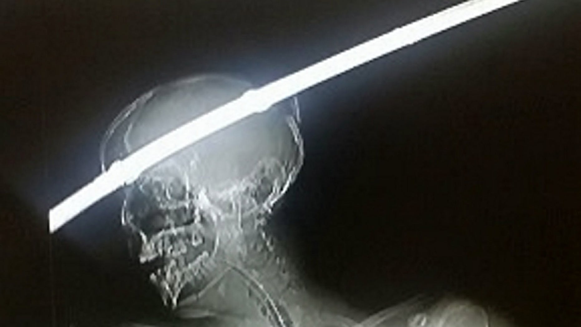 Car accident victim survives having head impaled by metal rod   Fox News