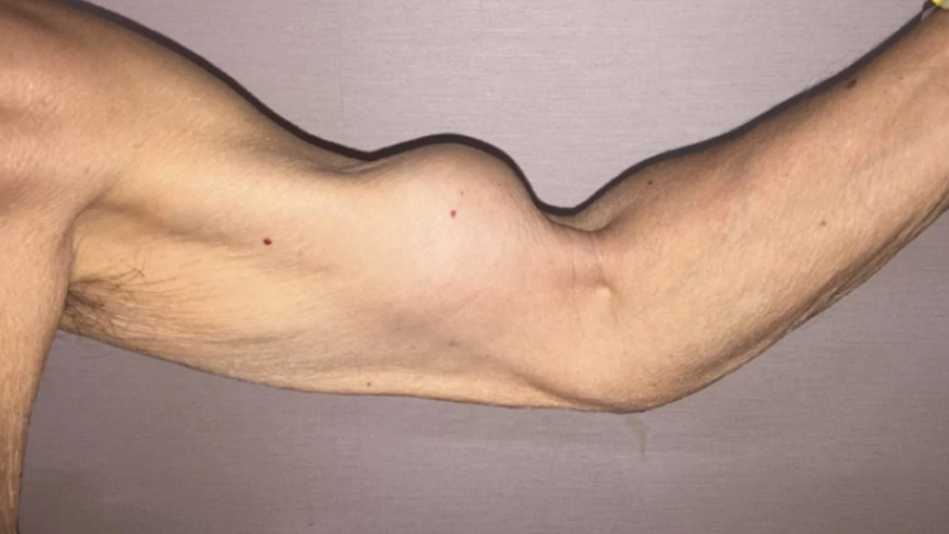 The 79-year-old's injury happened after he lifted an object and immediately felt a sharp pain in his left shoulder,