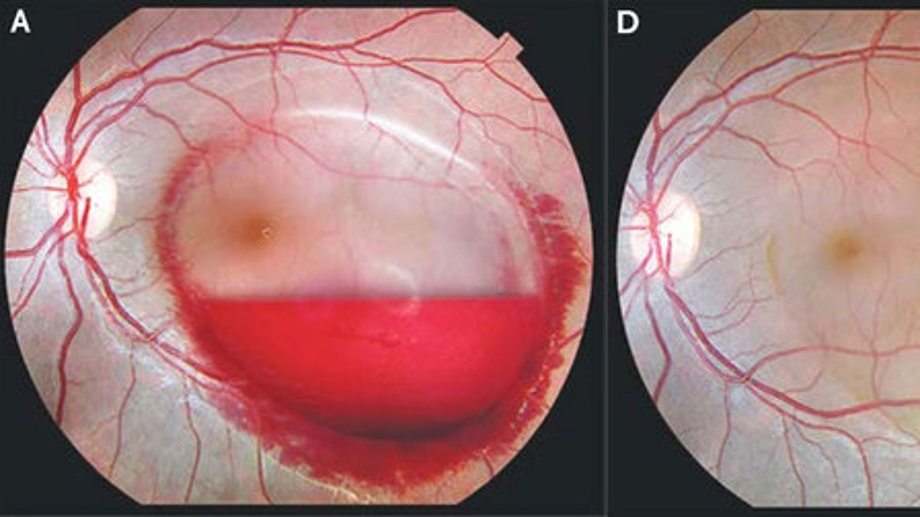 Forceful vomiting resulting from morning sickness caused a woman to burst a blood vessel in her left eye. Above, an image of the eye hemorrhage before and after it healed.