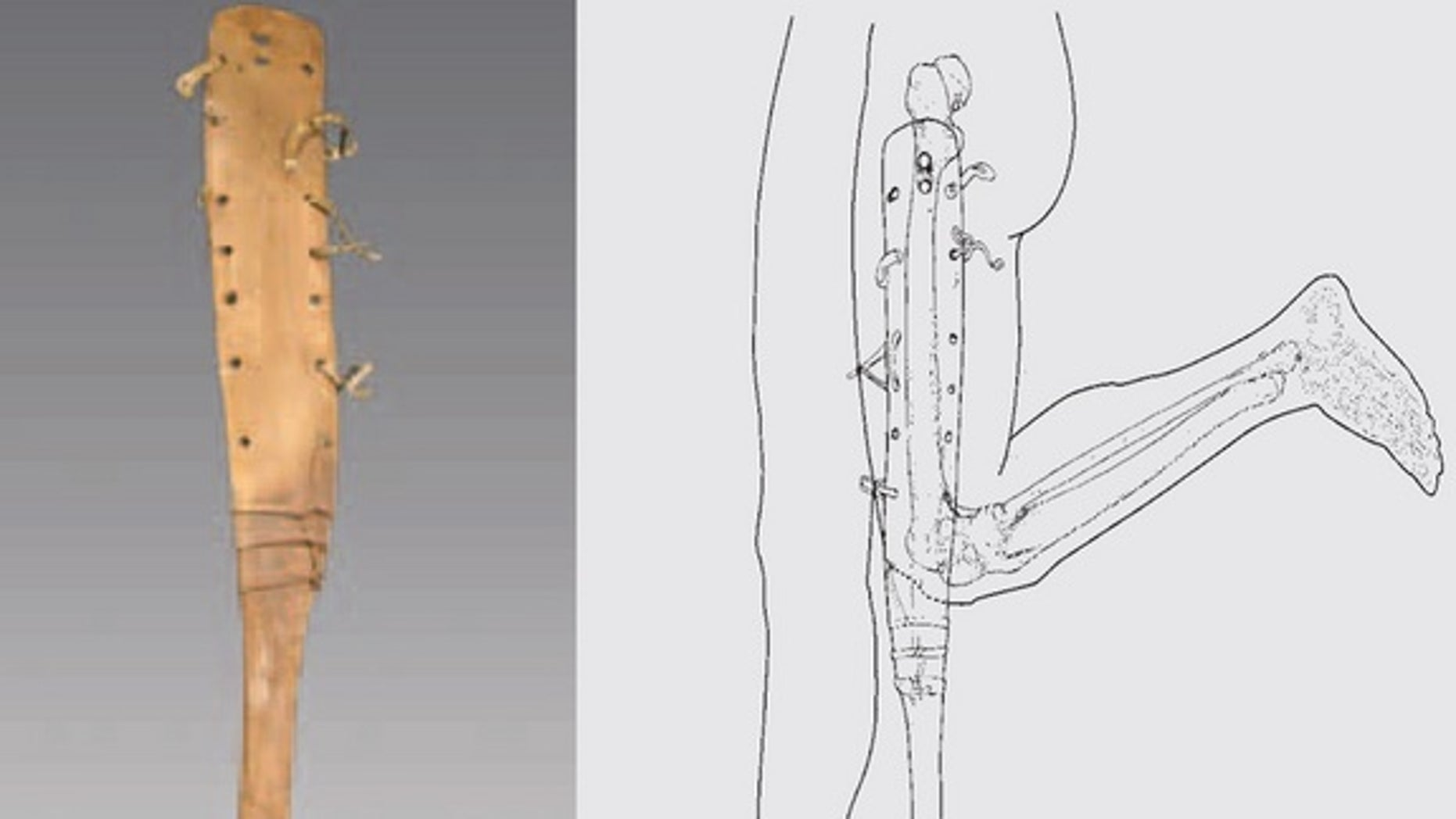 A 2,200-year-old prosthetic leg was discovered in a tomb in China and would've been worn by a man with a deformed knee.