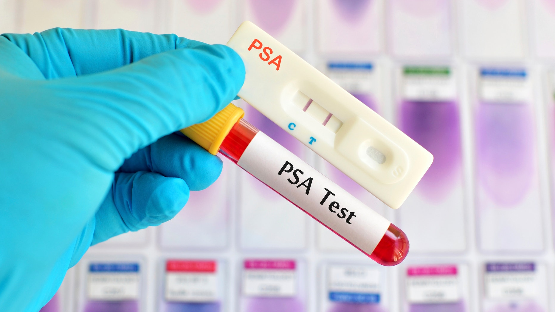 PSA testing (prostate cancer diagnosis) by using test cassette, the result showed positive (double red line)