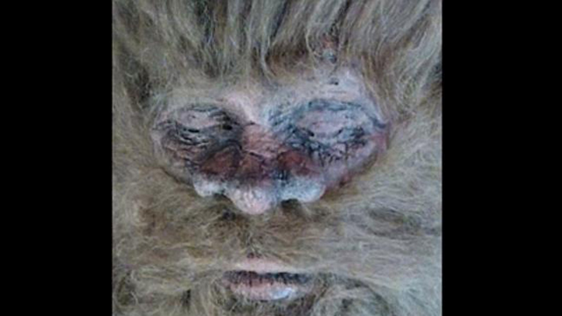 Bigfoot for real? This picture has been posted by an American hunter who claims to have killed the mythical beast.