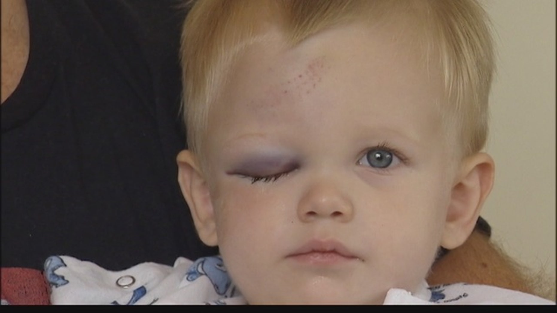 Rowan Senders is expected to make a full recovery after being hit by a home run ball at the Chicago White Sox game.