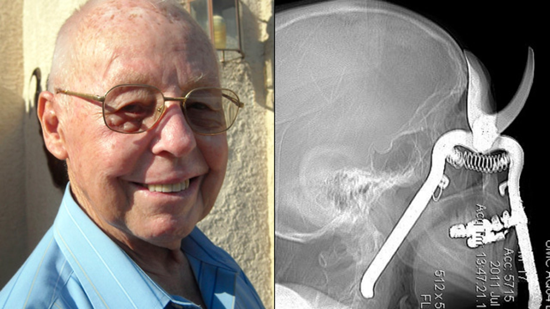From left, Leroy Luetscher is seen a month after pruning shears pierced through his eye socket.