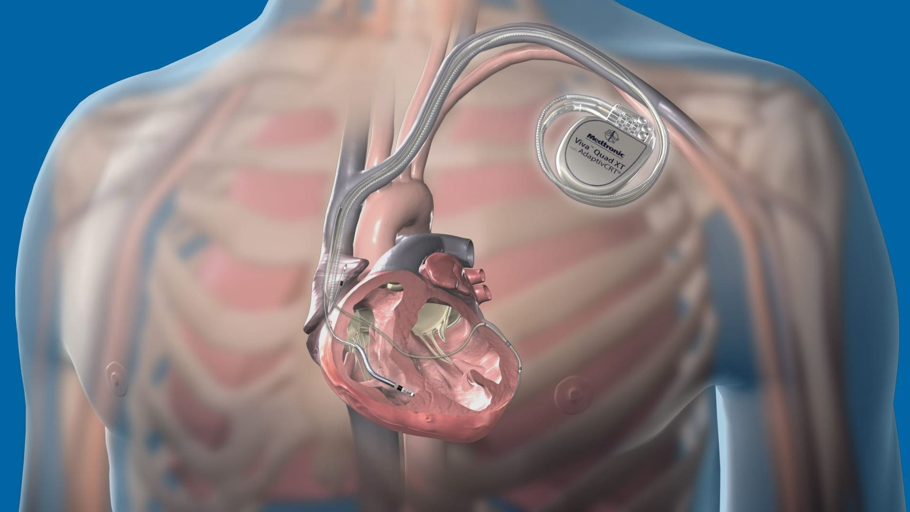 A new report in the Journal of the American College of Cardiology says there is a possibility that pacemakers and other electrical medical devices could be hacked.