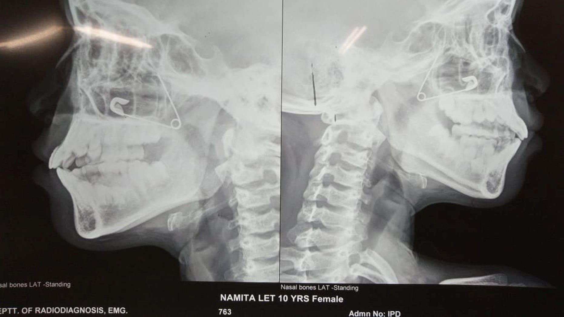 The 10-year-old girl needed surgery after getting a safety pin wedged up her nose.
