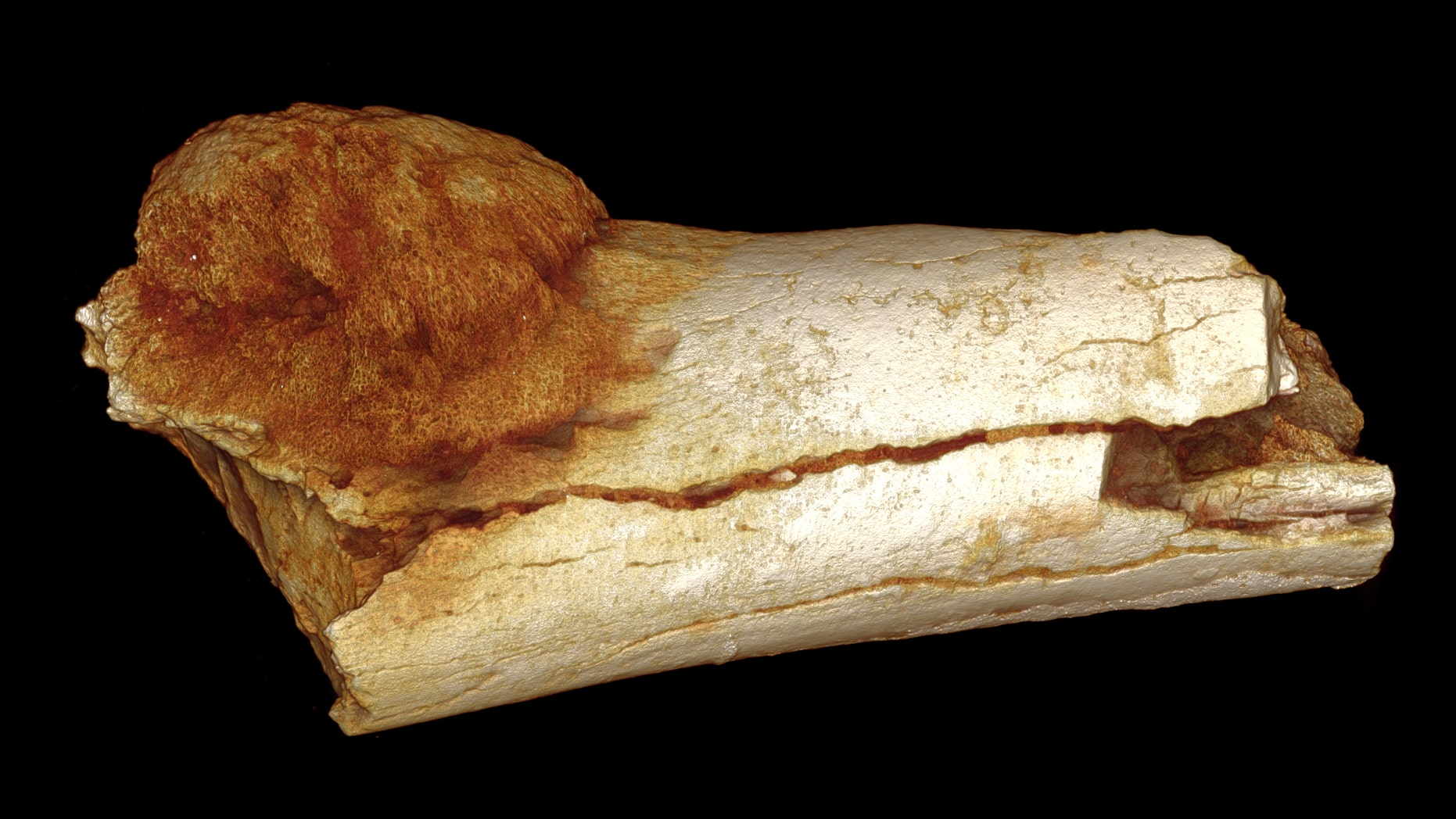 An image of the 1.7-million-year-old foot bone showing cancer.
