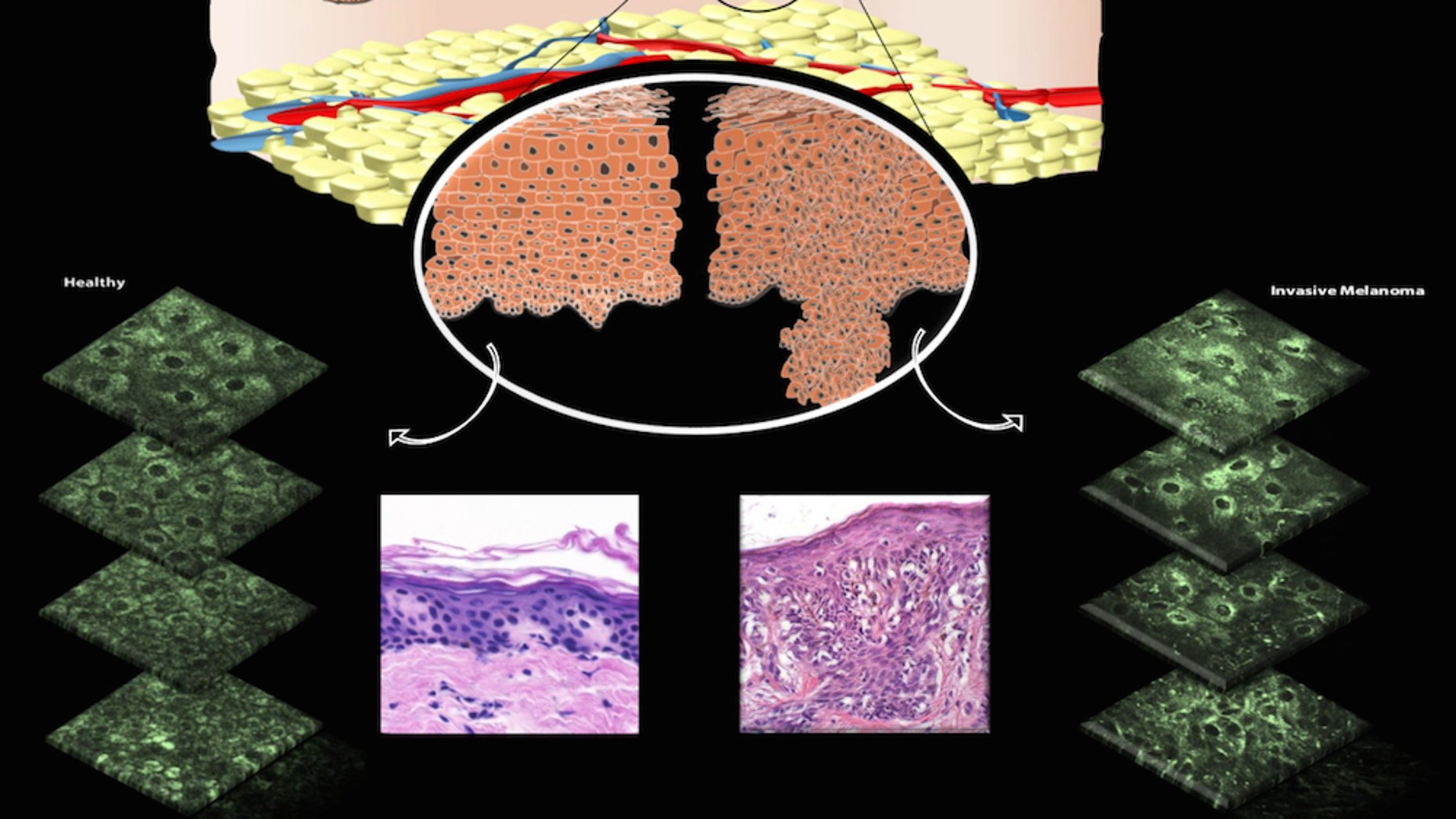 The top illustration shows both healthy (left) and unhealthy (right) cells, along with images taken of skin that's healthy (lower left) and skin with an invasive melanoma lesion (lower right).