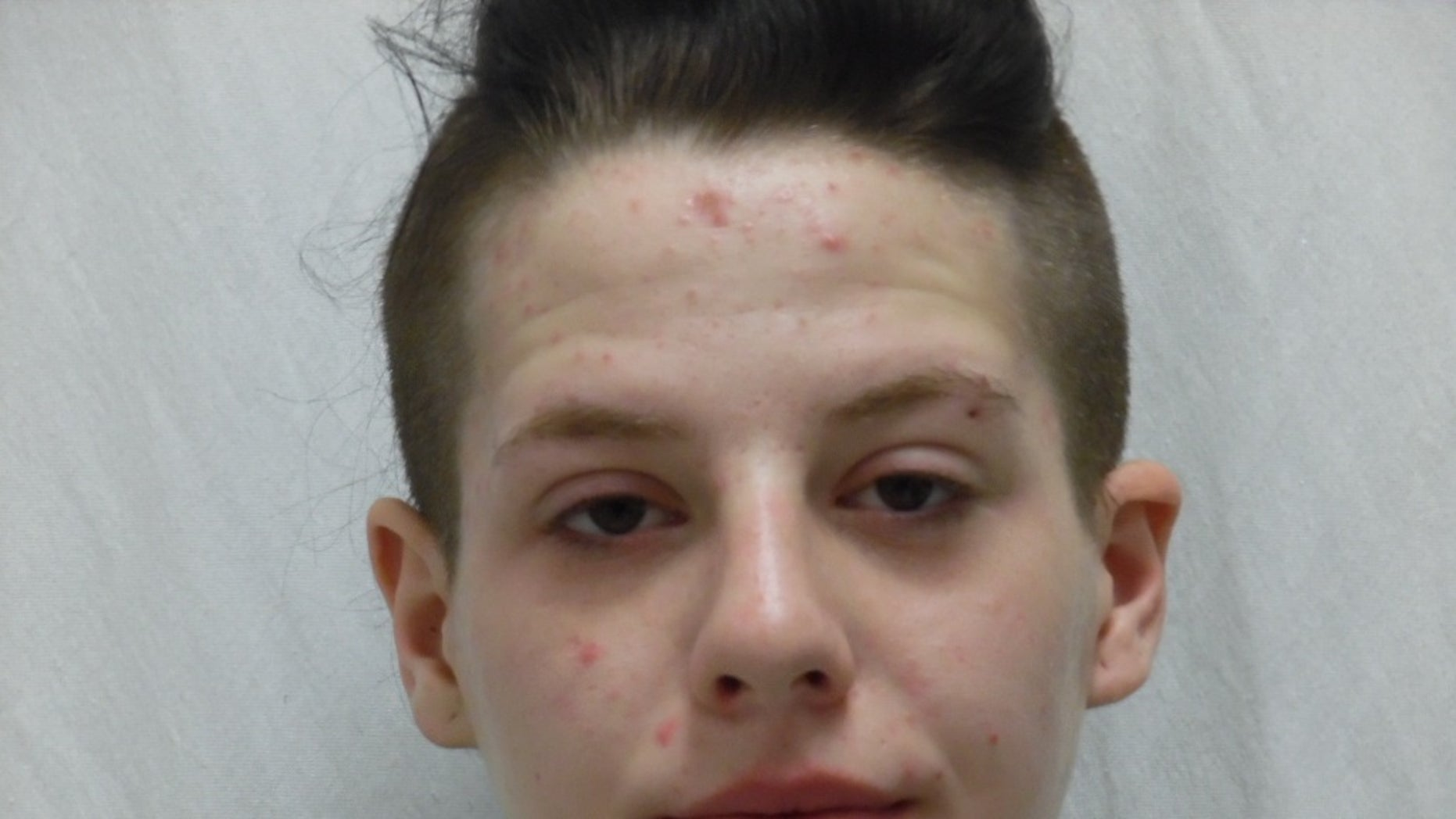 Sky Lynn Larsen, 19, was arrested Friday for reportedly stealing custom-made leg braces from a disabled girl.