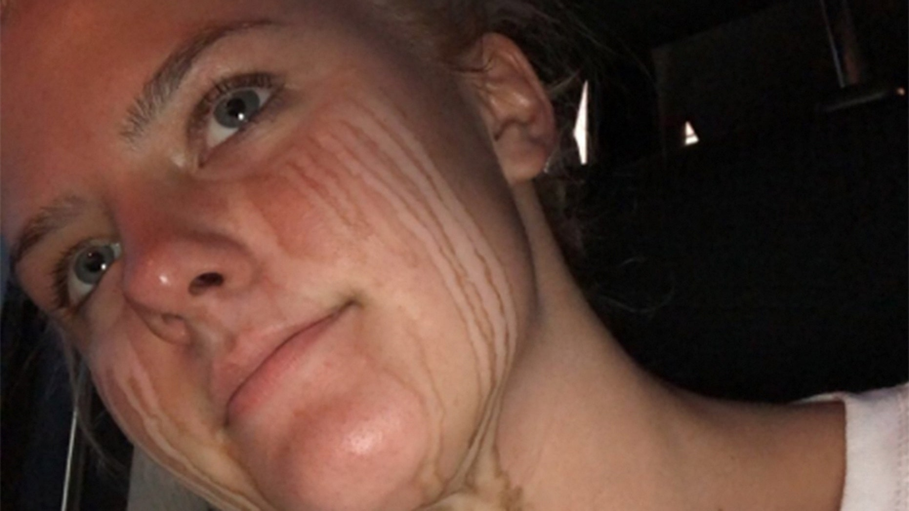A 17-year-old high school student's spray tan fail is making the internet laugh -- and relate.