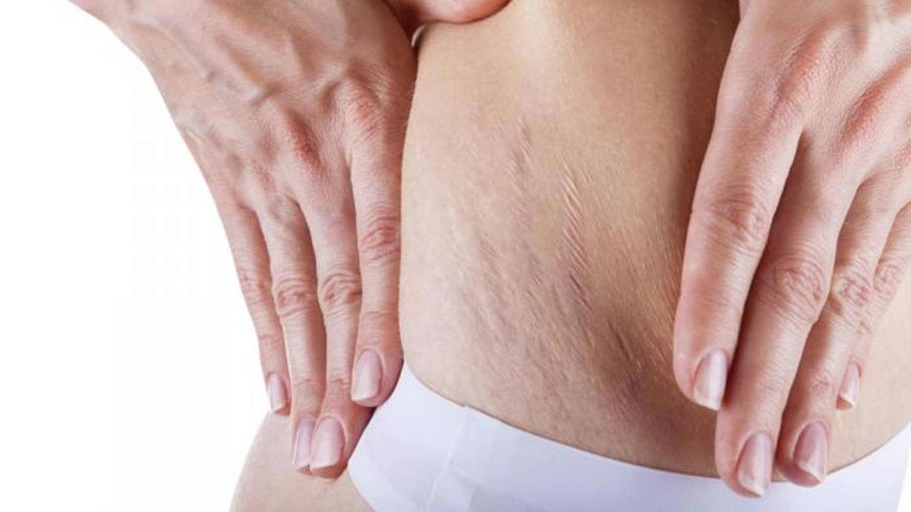 Stretch marks on the body: get rid of and warn