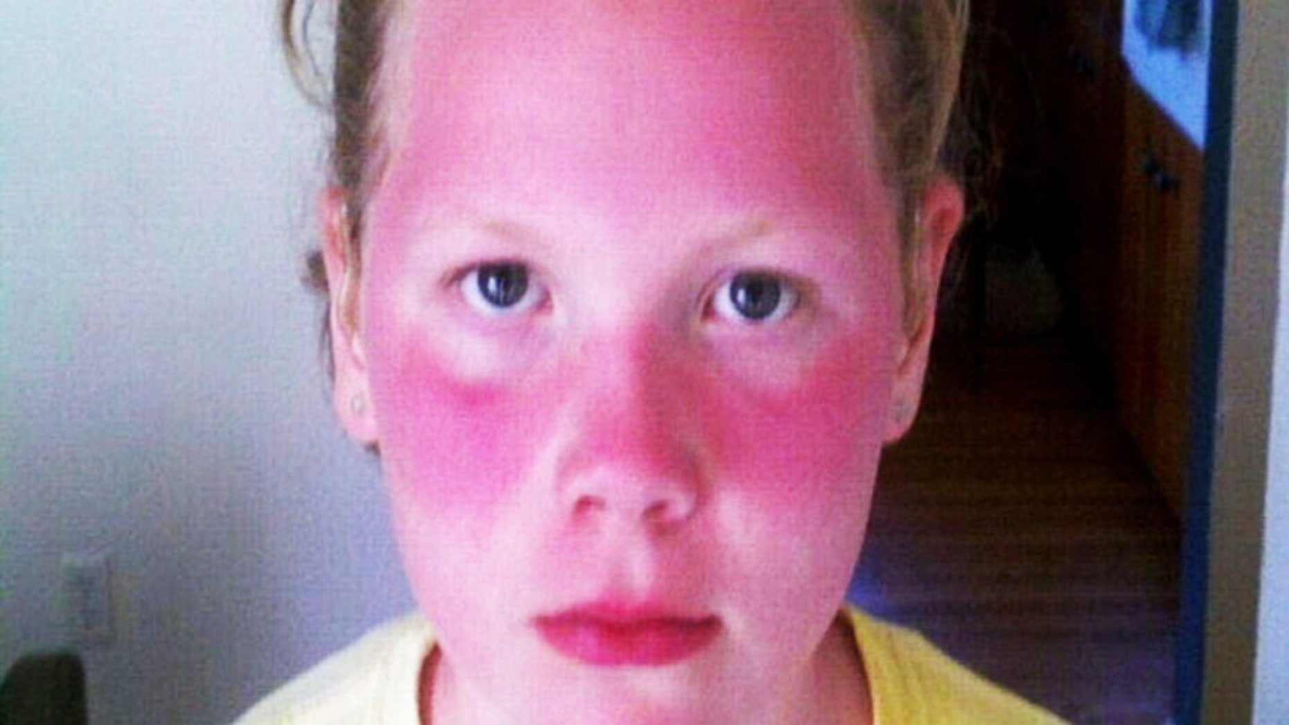 Violet MIchener is seen with a second degree sunburn after she spent five hours outdoors at her school's 'Field Day.'