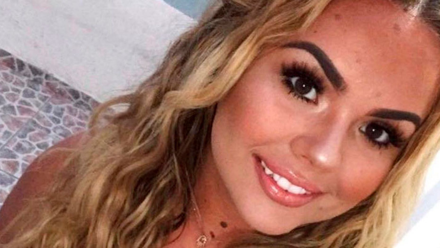 Lydia McDonnell reportedly suffered severe burns to her throat, lungs and arm in the fire.