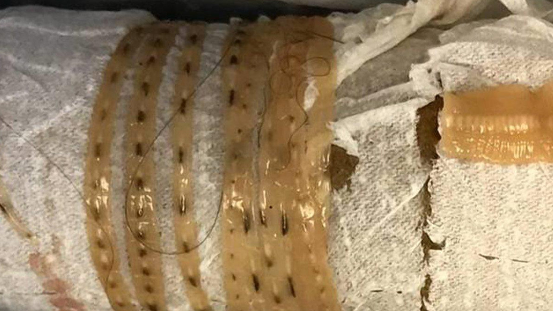 """""""I take out a toilet paper roll, and wrapped around it of course is what looks like this giant, long tapeworm,"""" Dr. Kenny Bahn said on the podcast."""