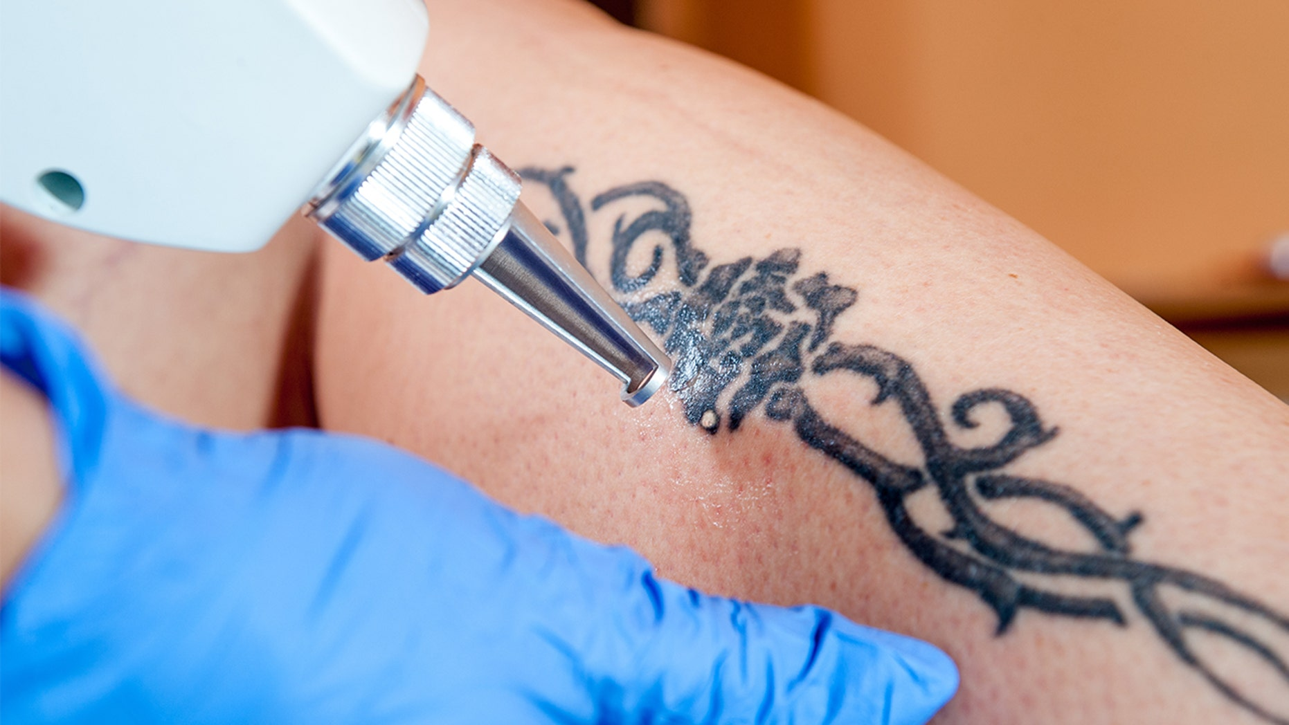 A free tattoo removal program is offering its services to young survivors of sex trafficking.