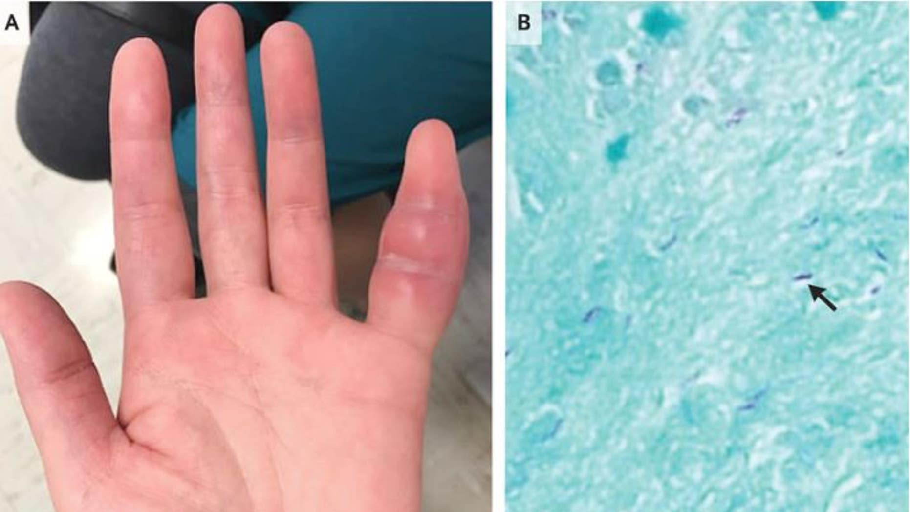 A woman's swollen finger was a rare sign of tuberculosis infection. Above, an image of the woman's finger (panel A), and a microscopic view of the infection (panel B). An arrow points to the tuberculosis bacteria.