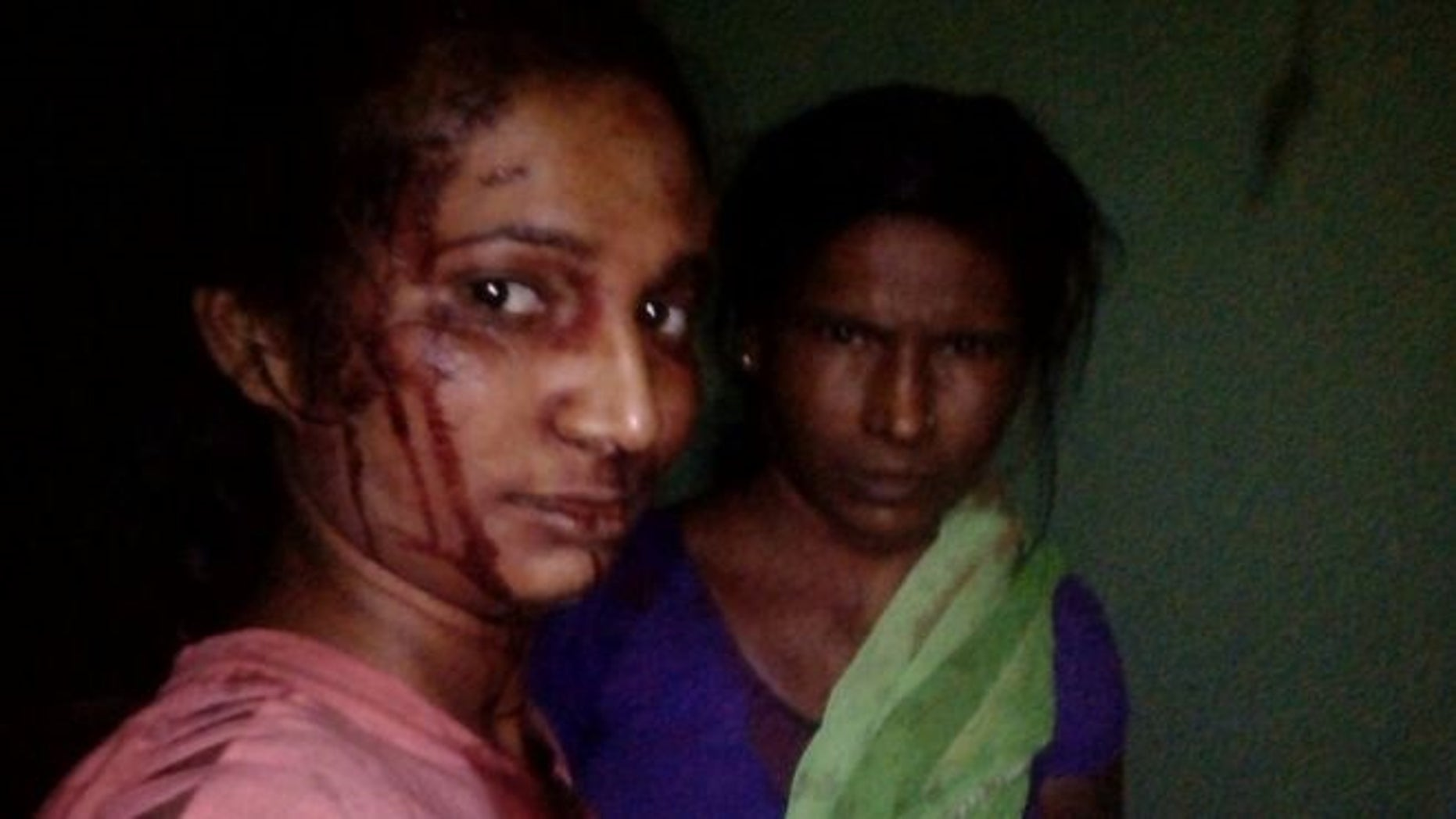 Rupali Meshram takes a photo of her and her mother, Jijabhai, following a fight with a tiger.