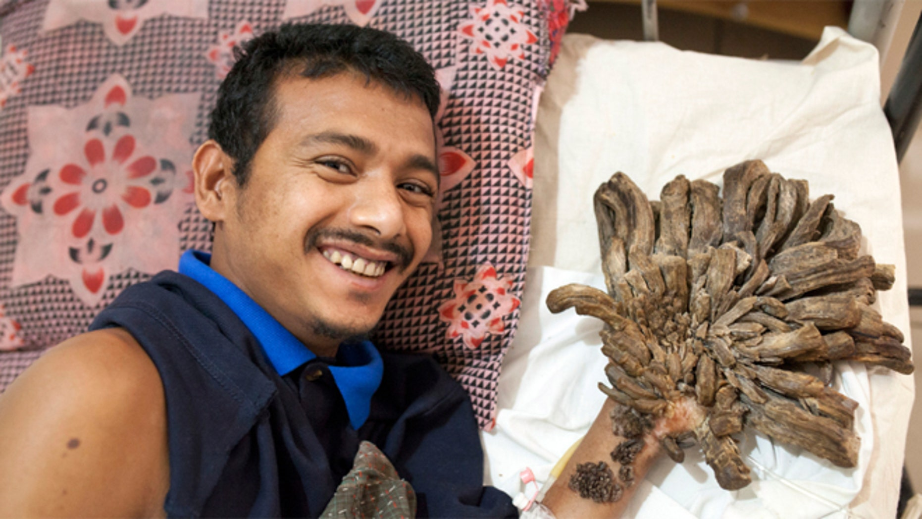 Abul Bjandar had growths on his hands and legs weighing up to 11 pounds.