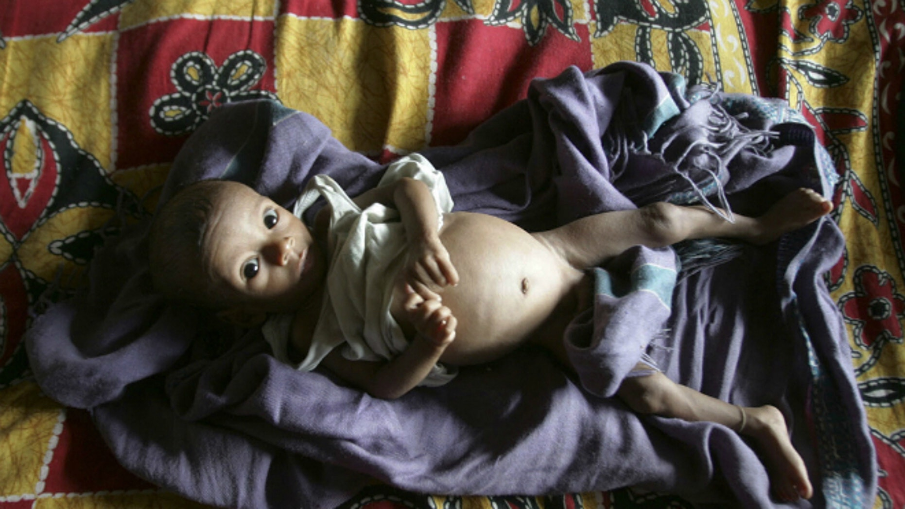 A five-month-old child with tuberculosis rests inside the tuberculosis ward of a hospital in India. (REUTERS/Rupak De Chowdhuri)
