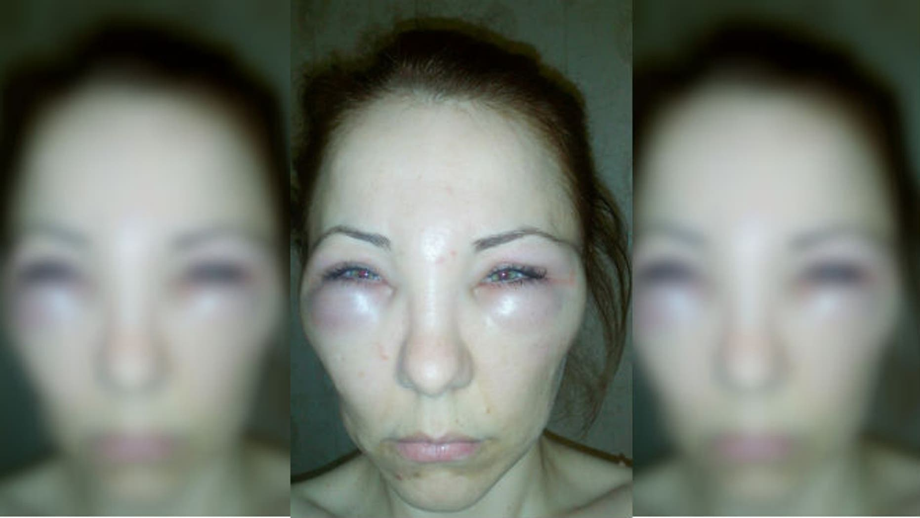 Hard Lump On Forehead After Botox ✓ The Amazing Toyota