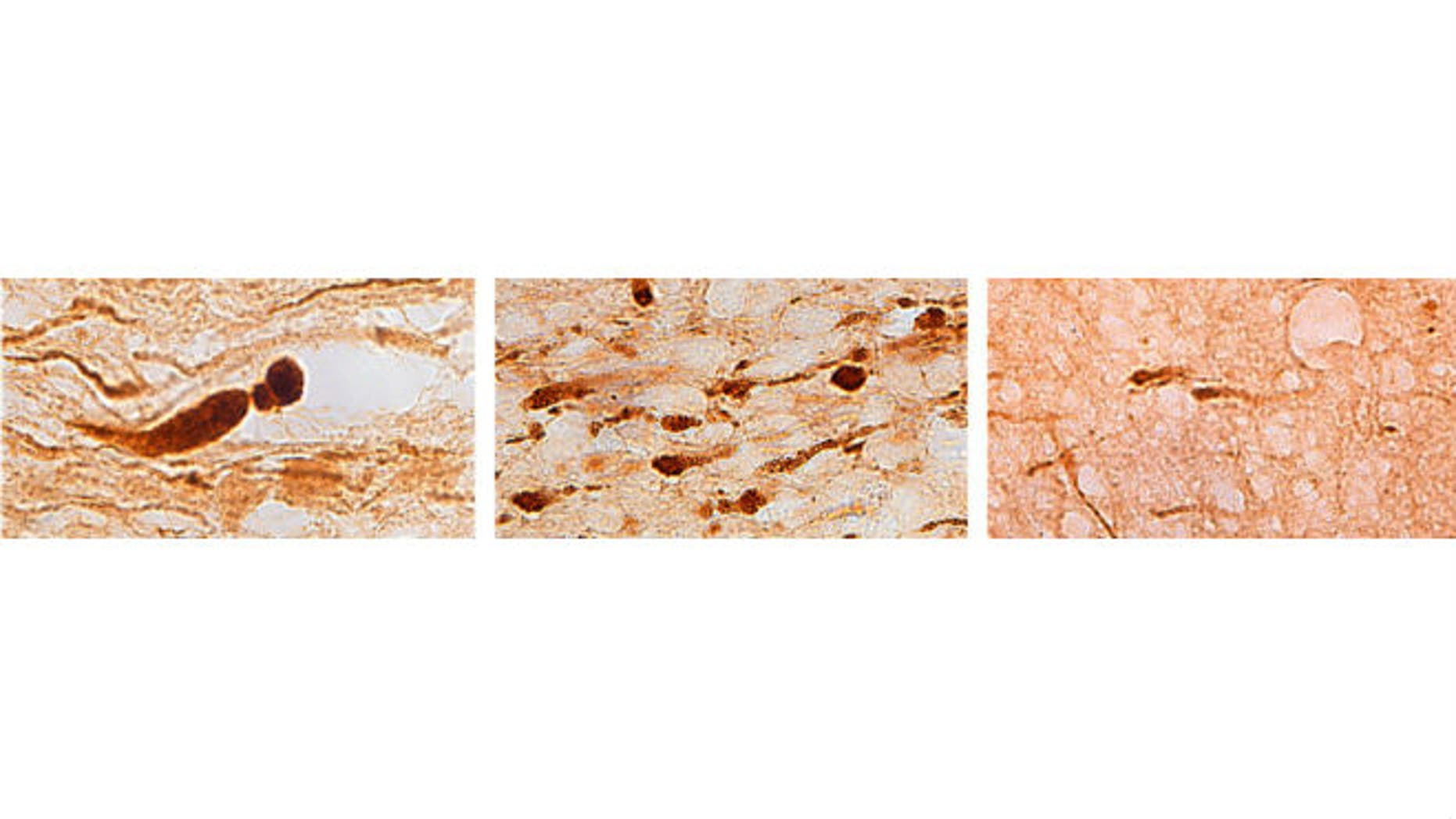 Brain sections from three different individuals show (left) axons with large, bulb-shaped lesions characteristic of a motor vehicle crash; (center) many smaller lesions characteristic of a blast injury; and (right) fewer lesions characteristic of an opiate overdose. (Credit: Vassilis Koliatsos)