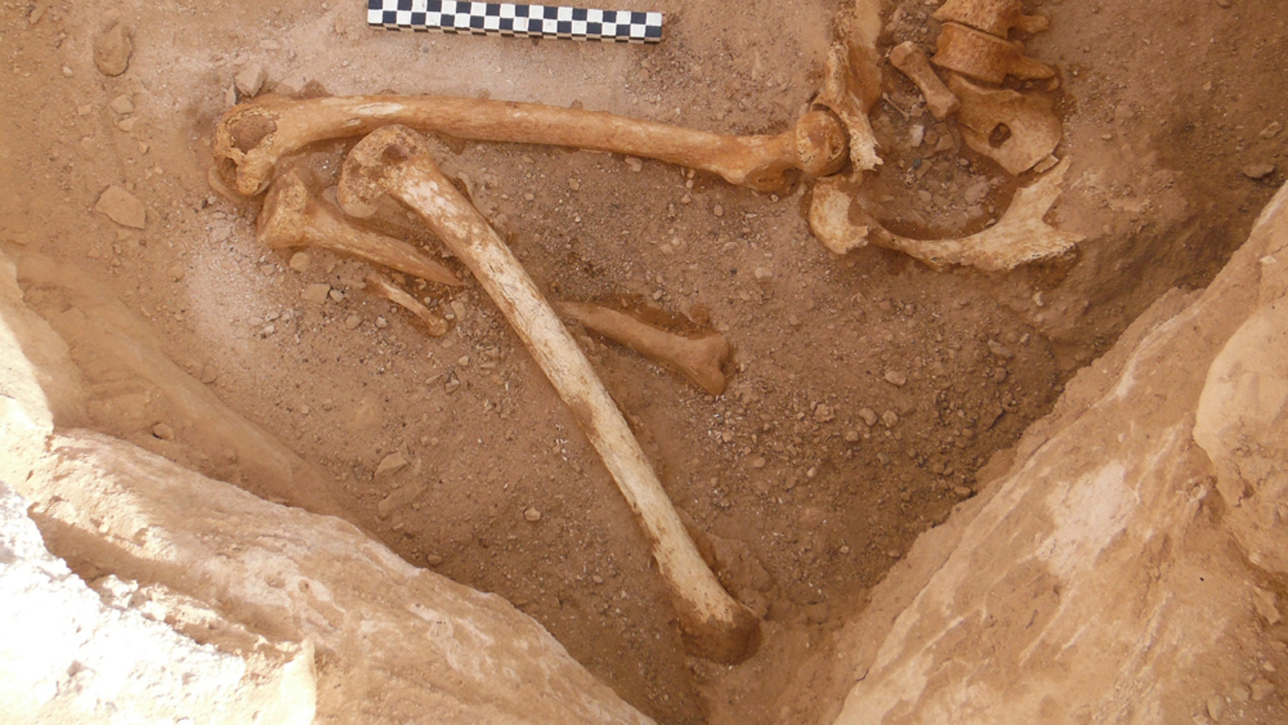 Remains of the pregnant woman's fetus bones in her pelvis can be seen in this photo. She was in her first trimester when she died.