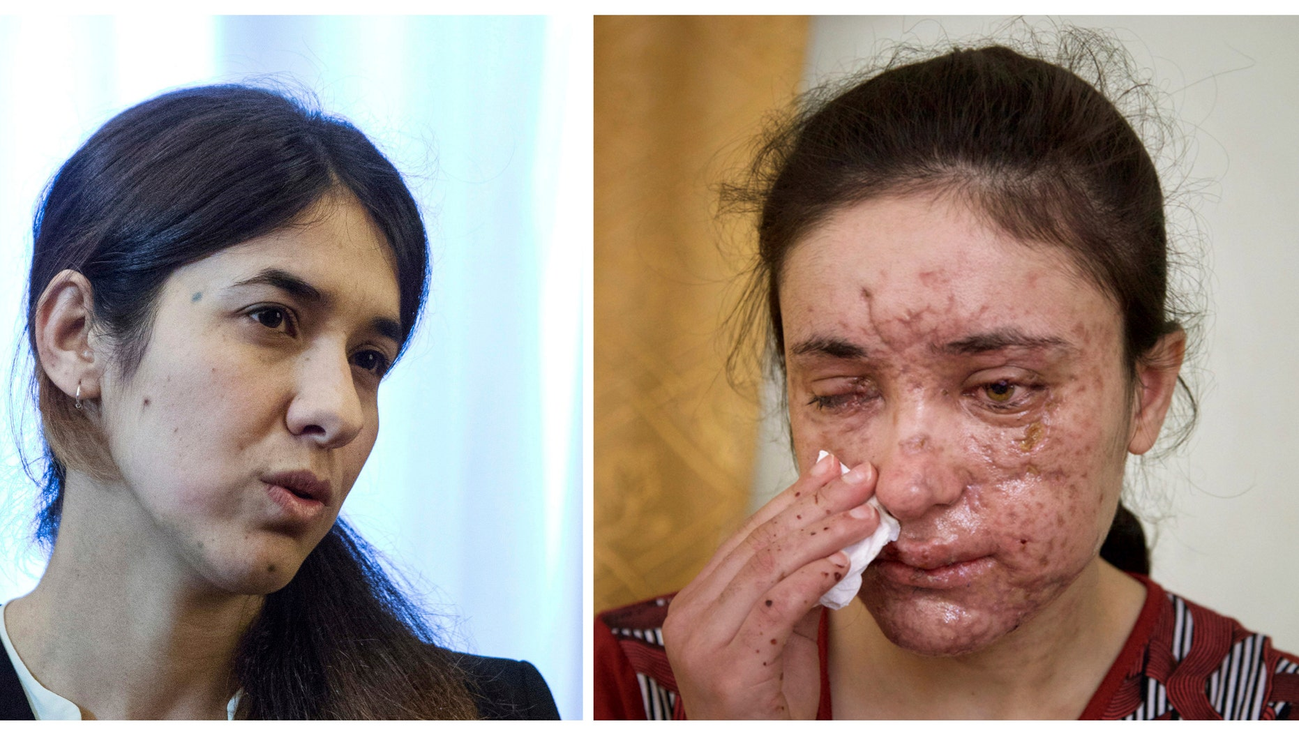 This photo depicts Iraqi Yazidis Nadia Murad Basee, left, and Lamiya Aji Bashar, right, who survived sexual enslavement by the Islamic State group.