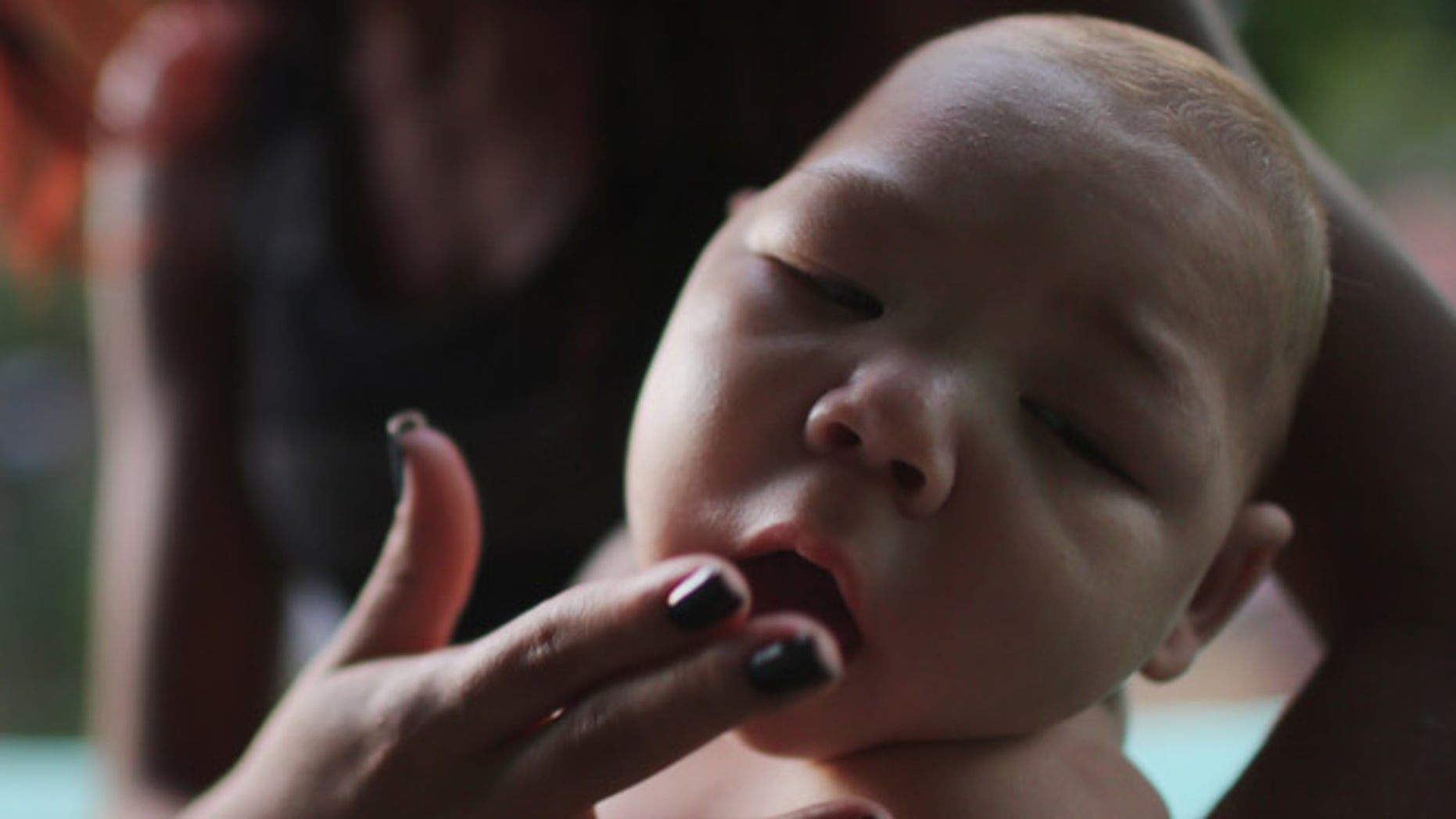 RECIFE, BRAZIL - JANUARY 25:  Estafany Perreira holds her nephew David Henrique Ferreira, 5 months, who has microcephaly, on January 25, 2016 in Recife, Brazil. In the last four months, authorities have recorded close to 4,000 cases in Brazil in which the mosquito-borne Zika virus may have led to microcephaly in infants. Microcephaly results in newborns with abnormally small heads and is associated with various disorders including decreased brain development. According to the World Health Organization (WHO), the Zika virus outbreak is likely to further spread in South, Central and North America. At least twelve cases of Zika in the United States have now been confirmed by the CDC.  (Photo by Mario Tama/Getty Images)